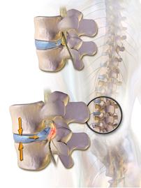 椎間板 ヘルニア 痛み 神経痛 治療