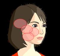 顔面の痛み(赤丸の部分)