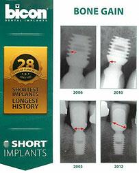 Knochenzuwachs an kurzen Bicon Implantaten nach prophetischer Versorgung
