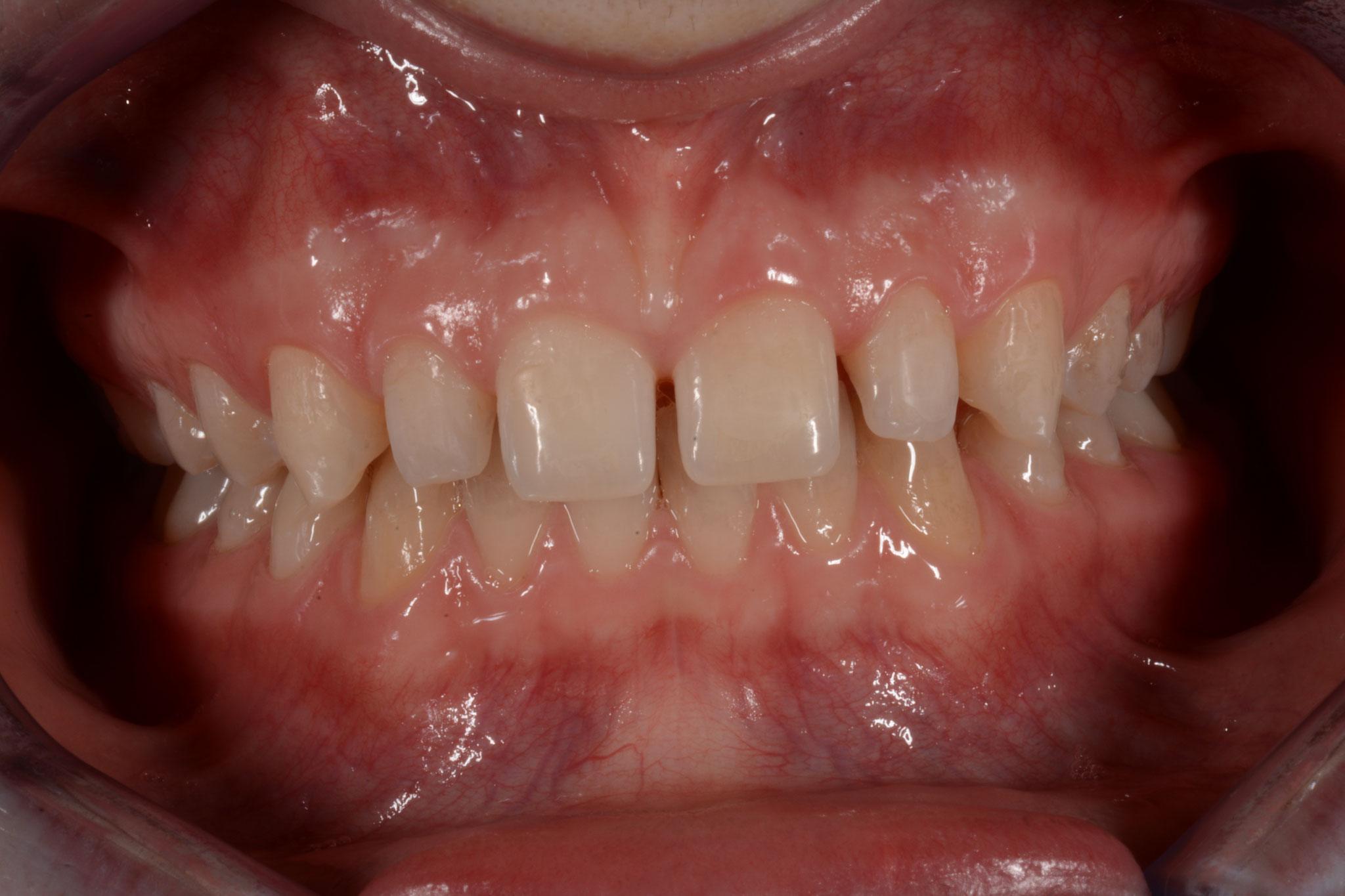 met spleetjes tussen de tanden