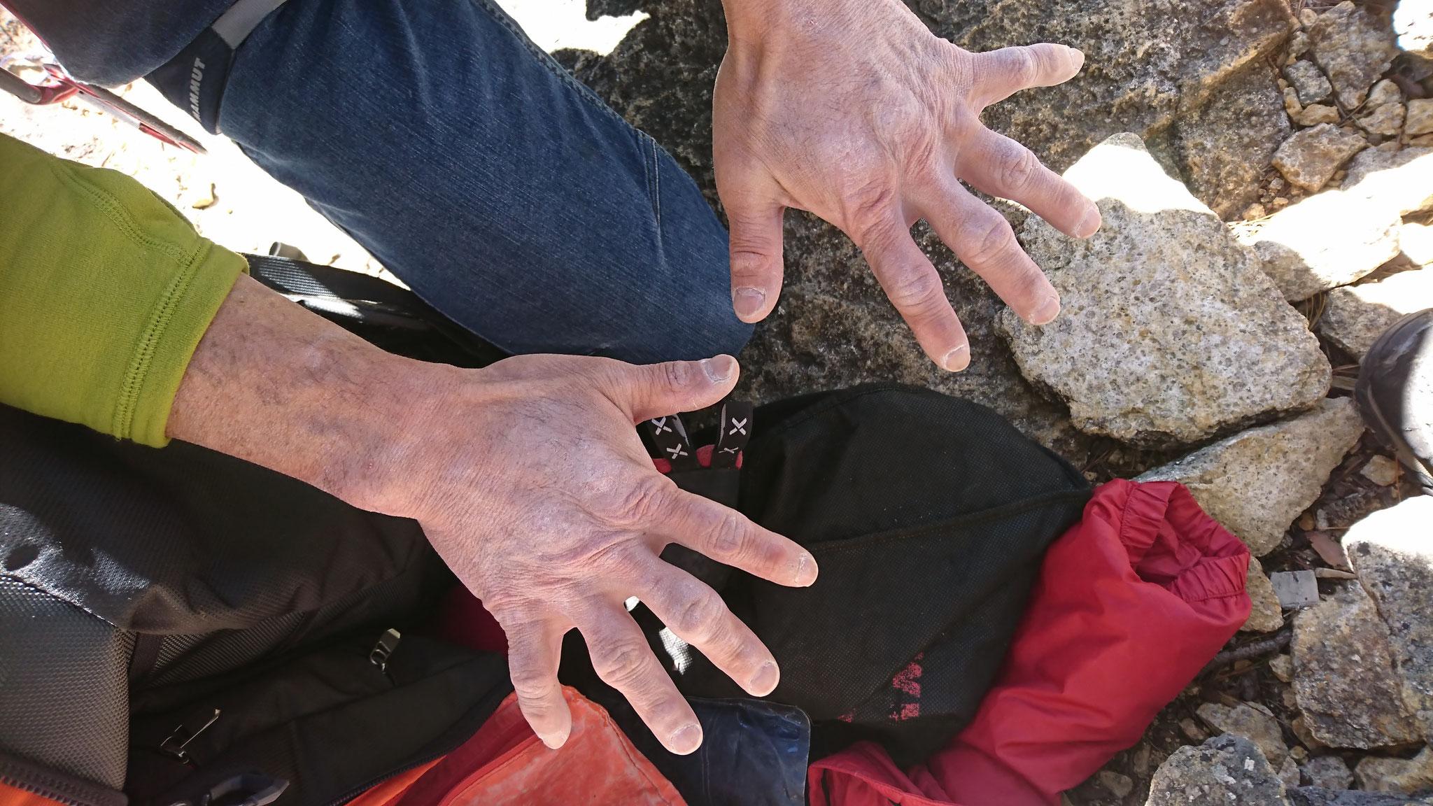 杉野さんの手、超人ハルクのような・・・・