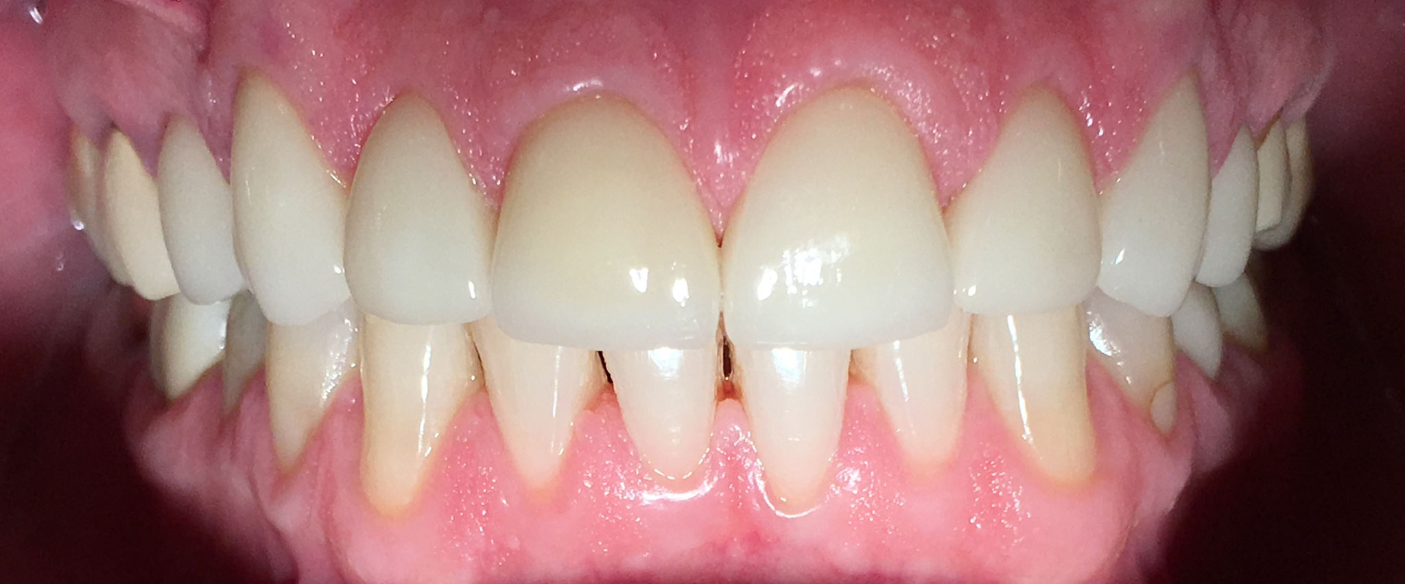 1) AFTER | Cosmetic veneers