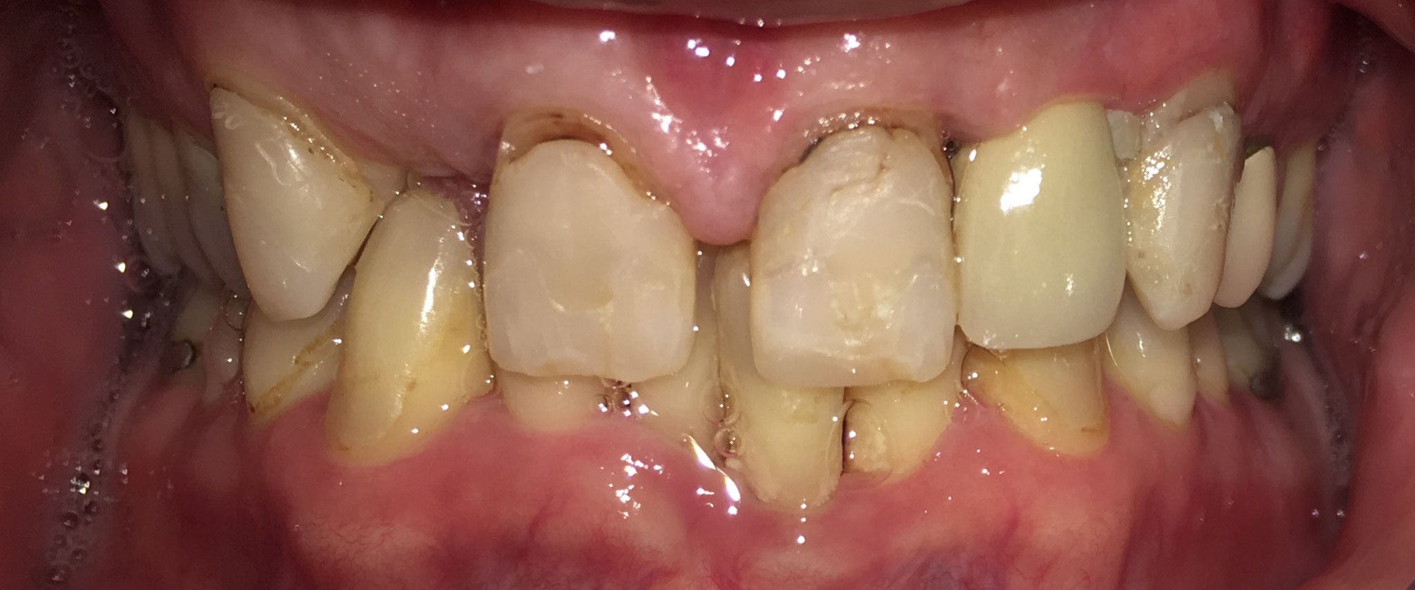 BEFORE | Full mouth crown and bridge case