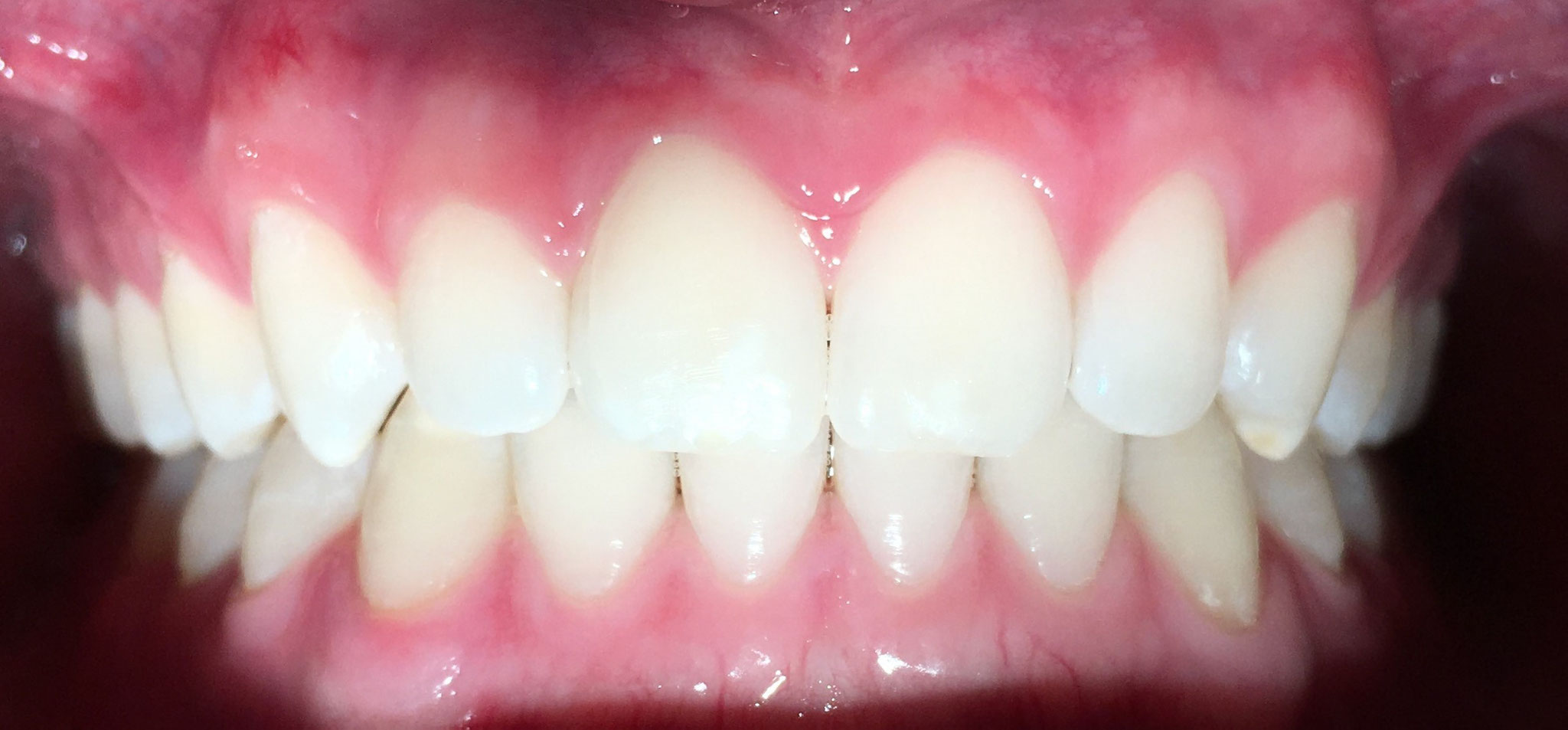 AFTER | Invisalign treatment
