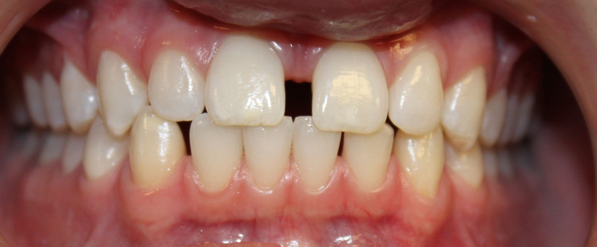 BEFORE | Invisalign treatment patient had severe gapping
