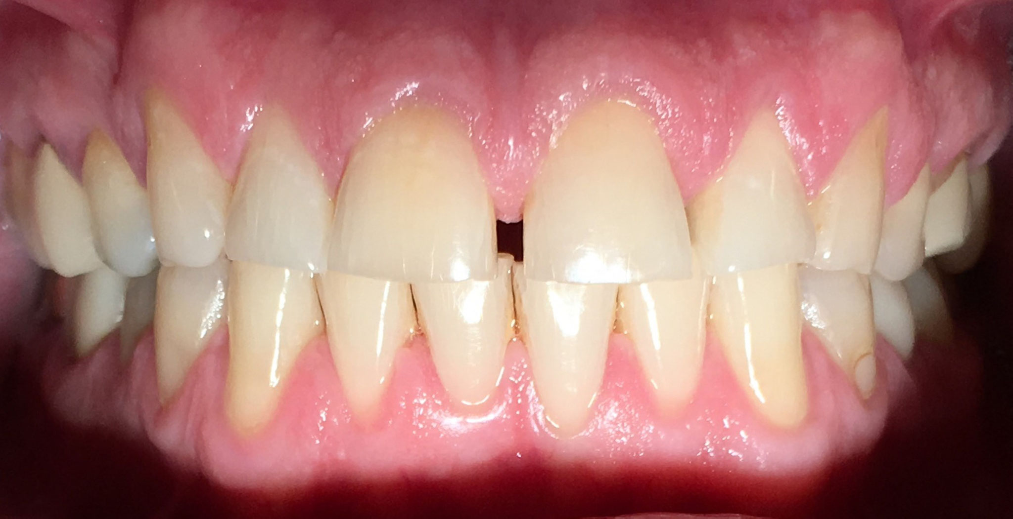 BEFORE | Cosmetic veneers. Patient had severe gapping and wear