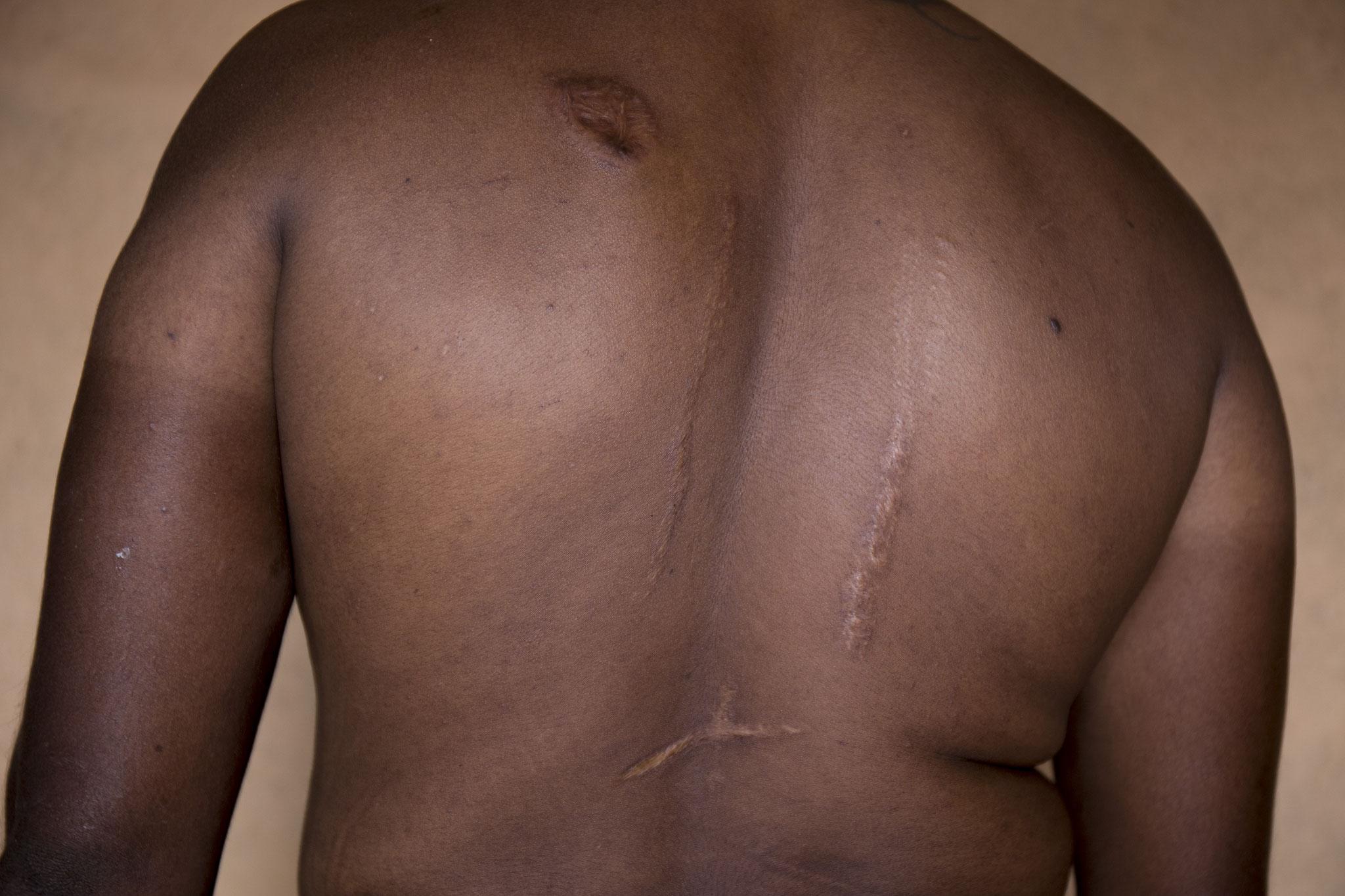 Ein junger Mann wurde auf der Flucht vor dem Bürgerkrieg von Granatensplittern getroffen. Damals war er 14 Jahre alt. Heute lebt er mit seiner 12-köpfigen Familie im Dorf der Vertriebenen in einem Haus. Keerimalai, 2018