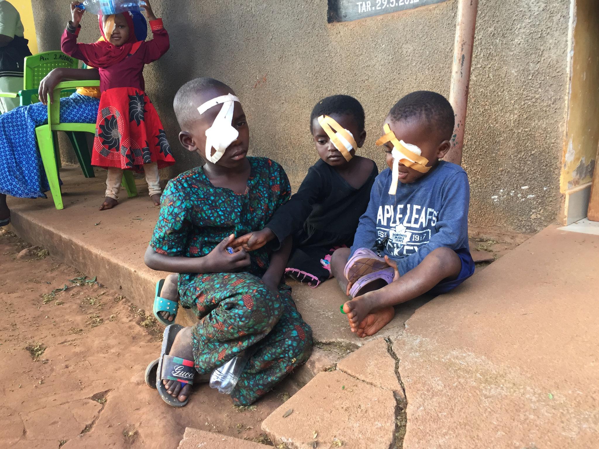 Kinder mit perforierender Augenverletzung