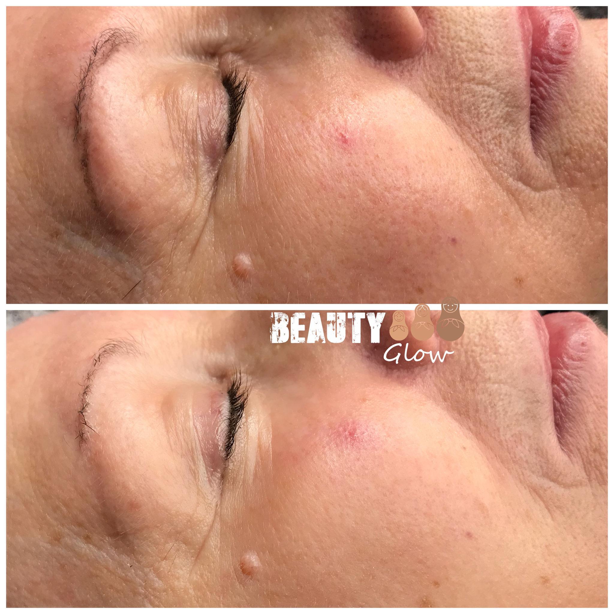 Beauty Glow - Gesichtsbehandlung