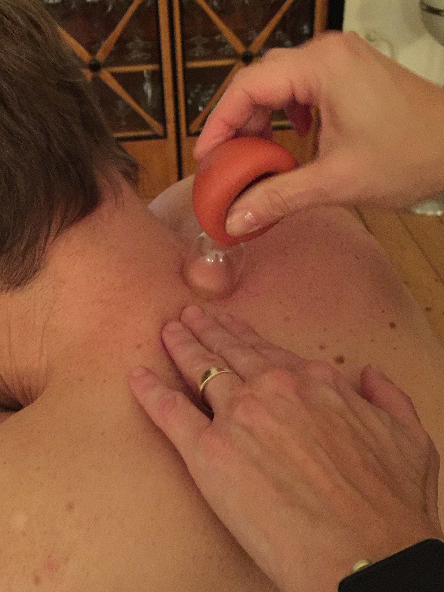 Schröpfmassage