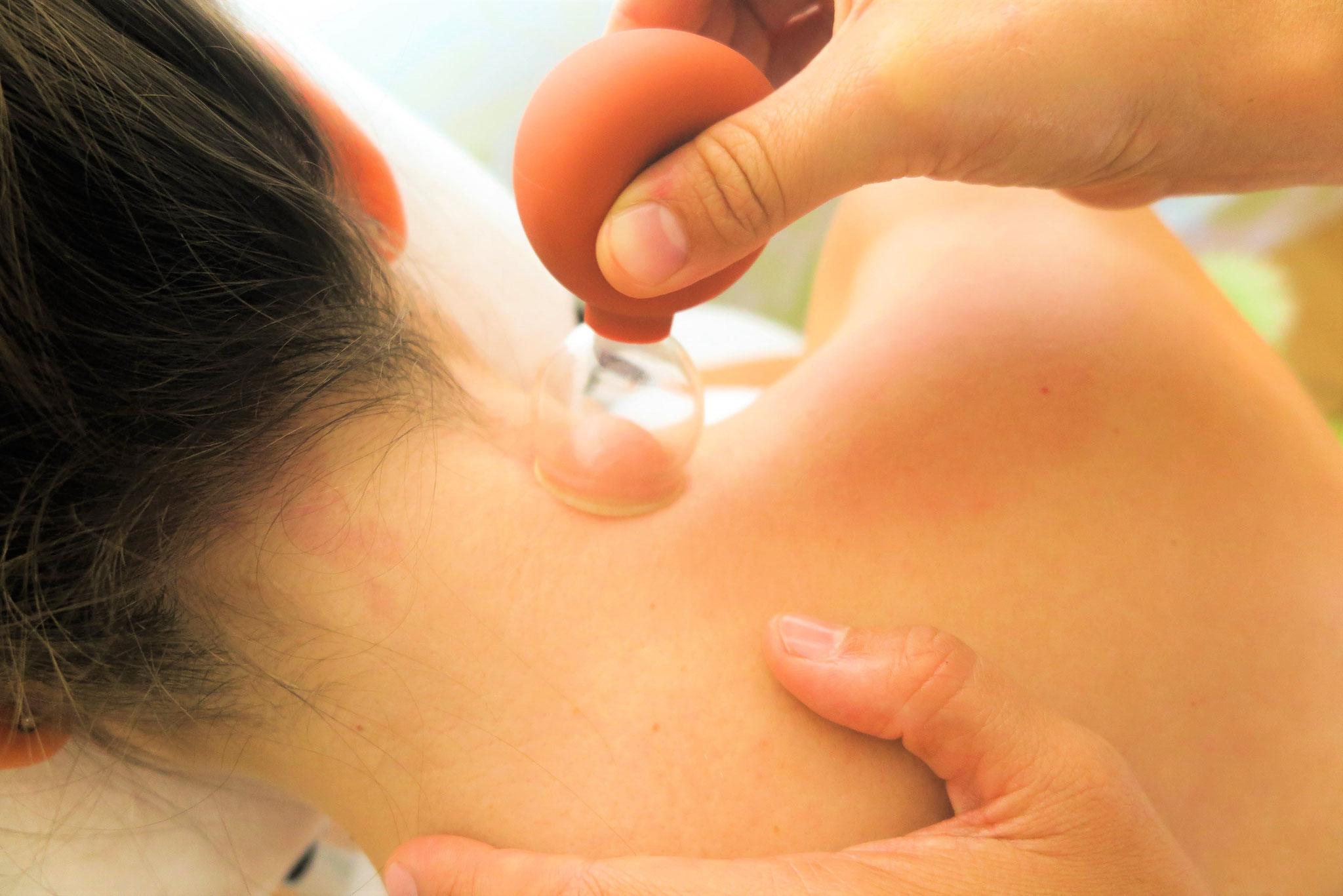 Schröpfmassage am Nacken, August 2019