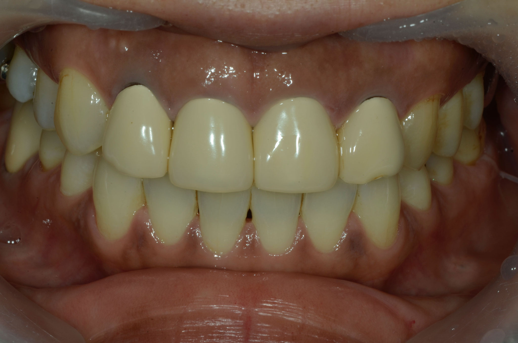 Before: The patient had a monotonous color, and he was unhappy with metal ceramics with a breath taste.