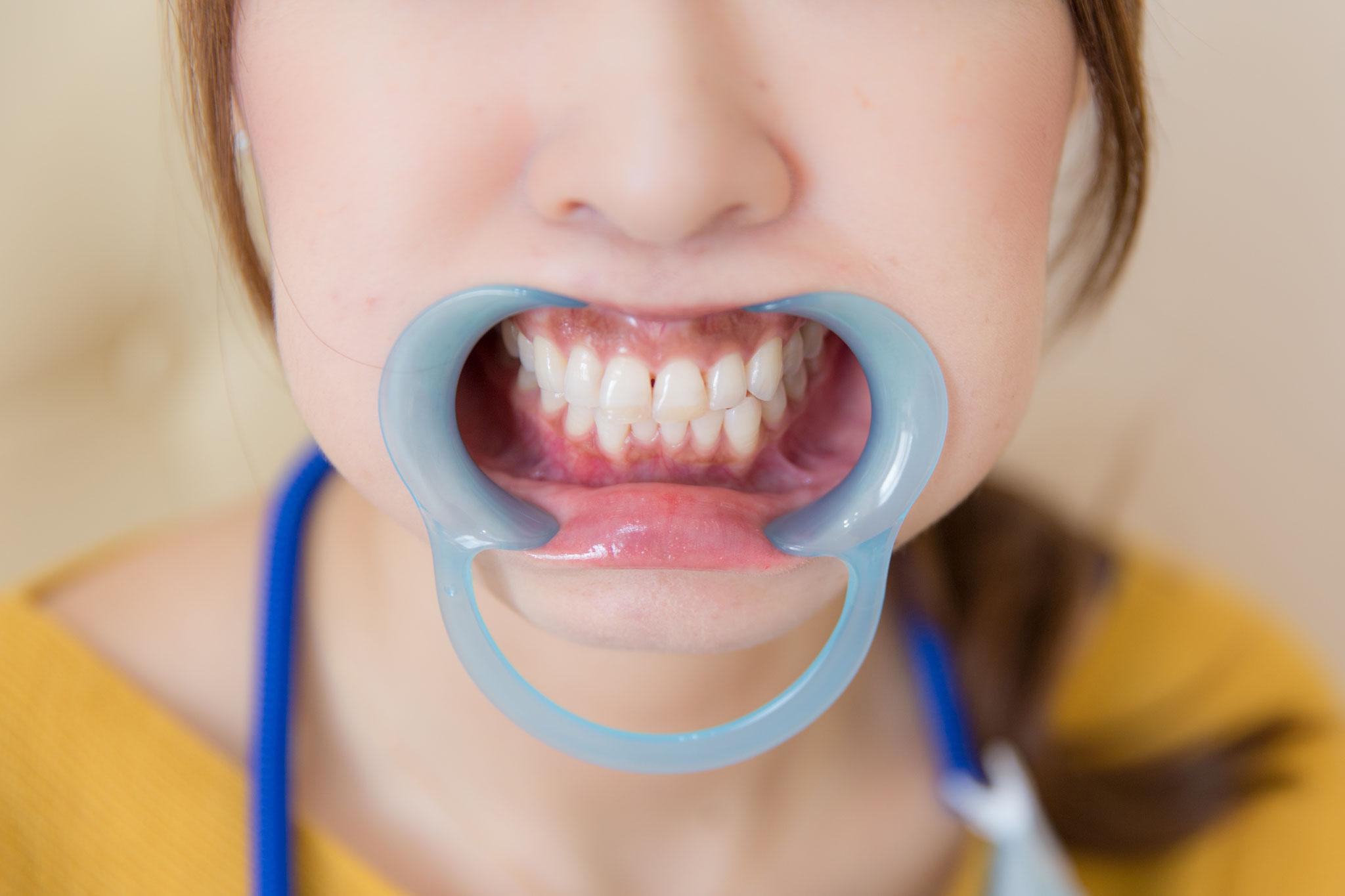 マウスオープナーを装着して口を大きく開きます。
