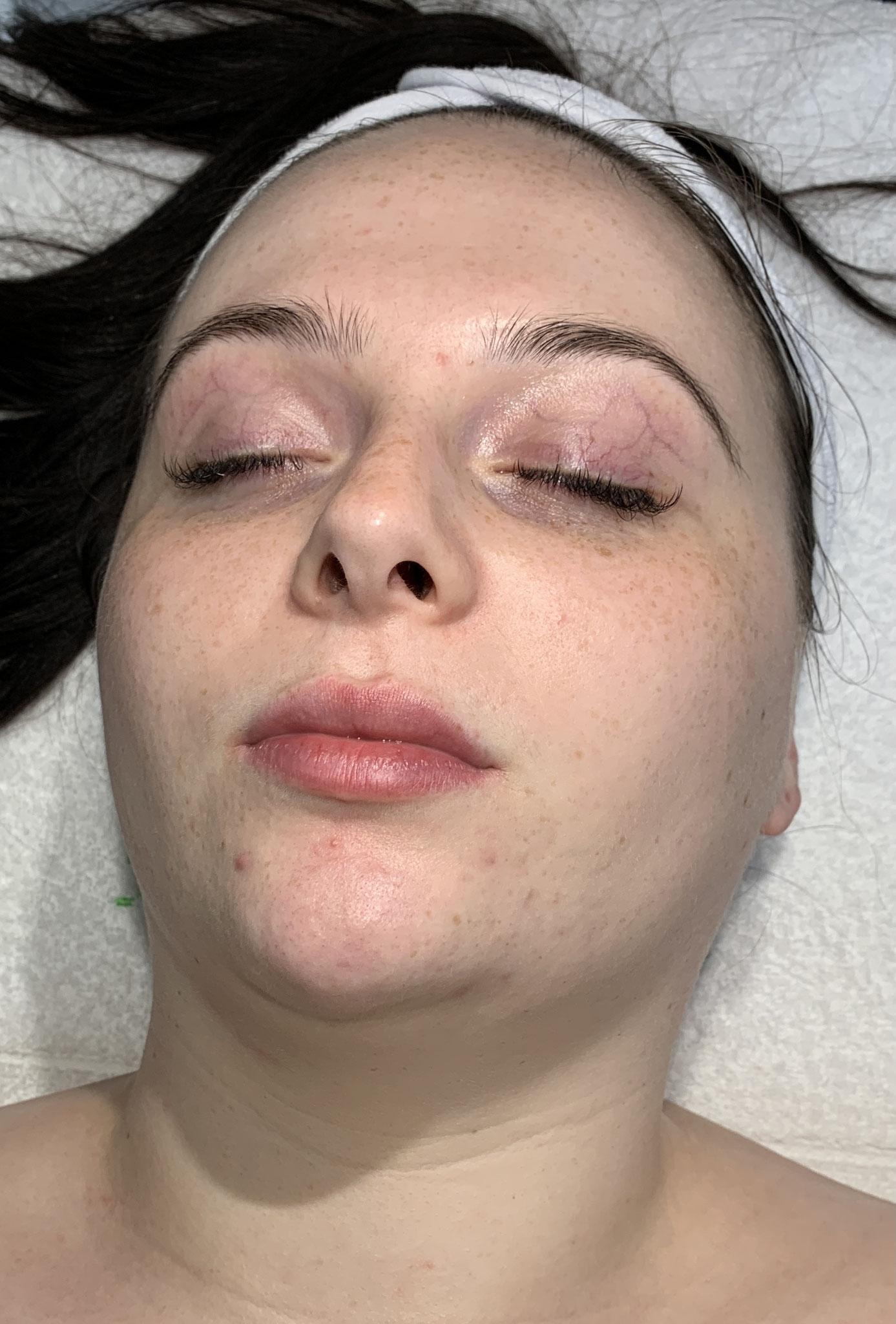 1. Huidtoestand voor de behandeling met de Herbal Bio Peeling