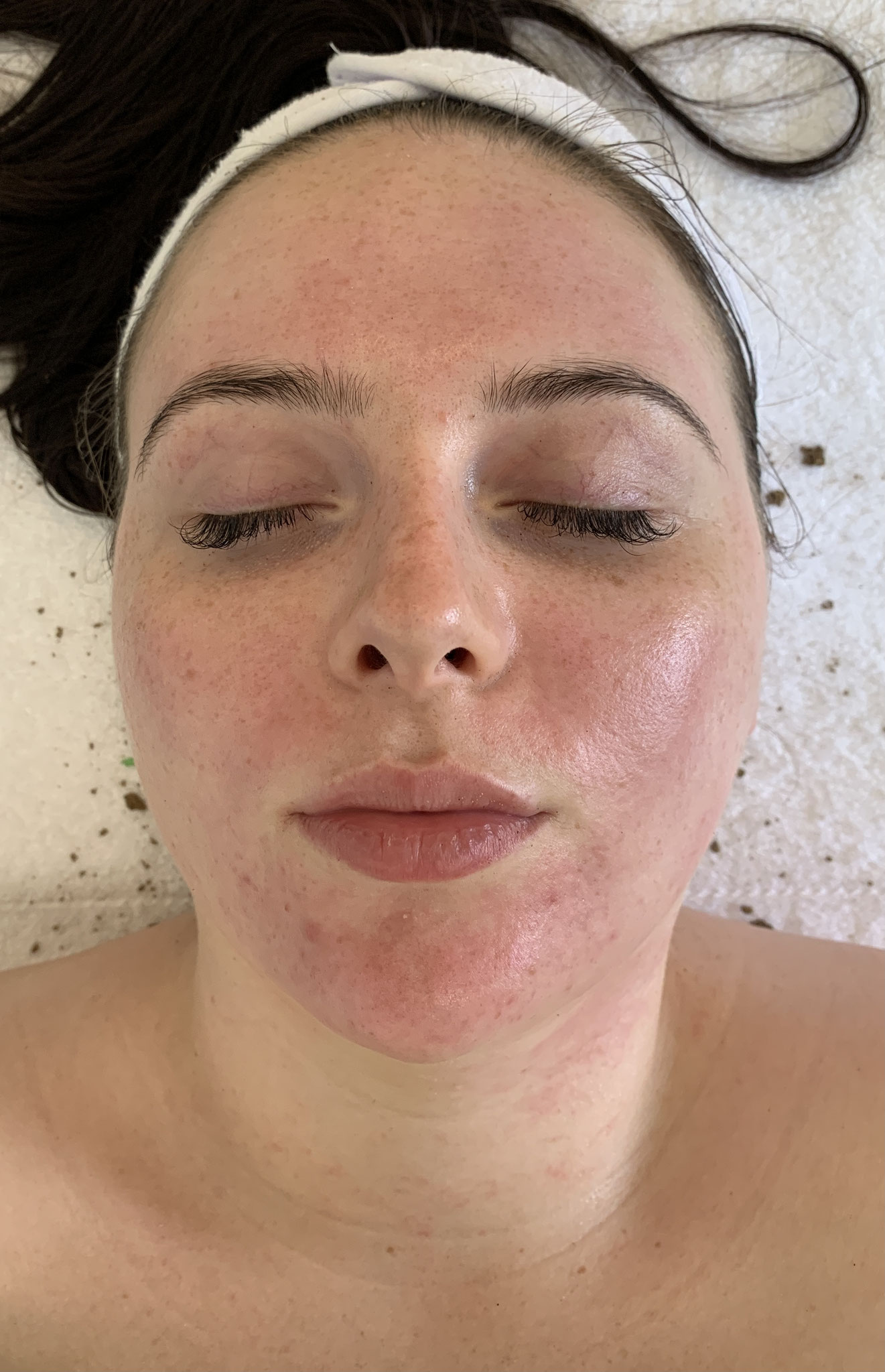 4. De huid na de Herbal Bio Peeling en de lichttherapie