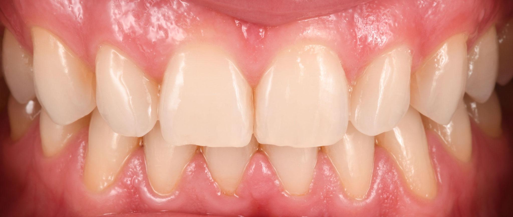 Case-1. 5 NEW SMILE Aditional veneers Creation CC