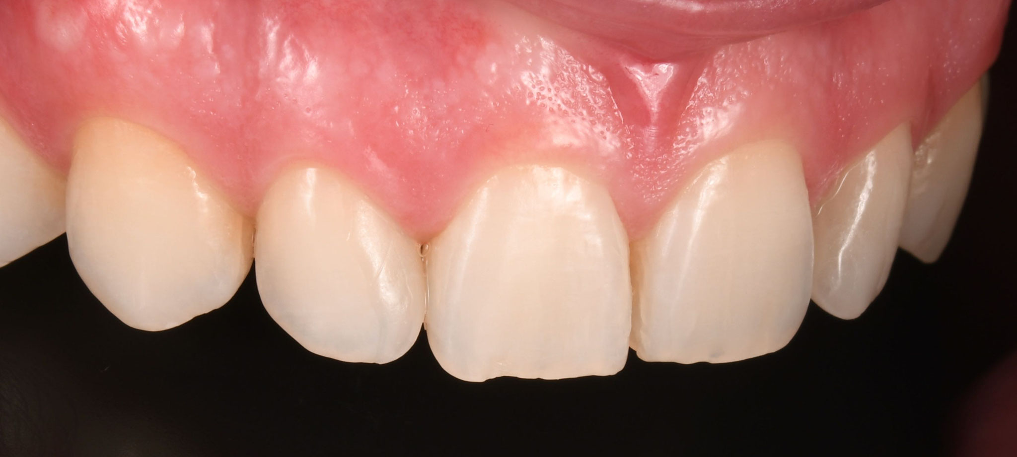 Case-1. 7 Adittional Veneer on lateral right