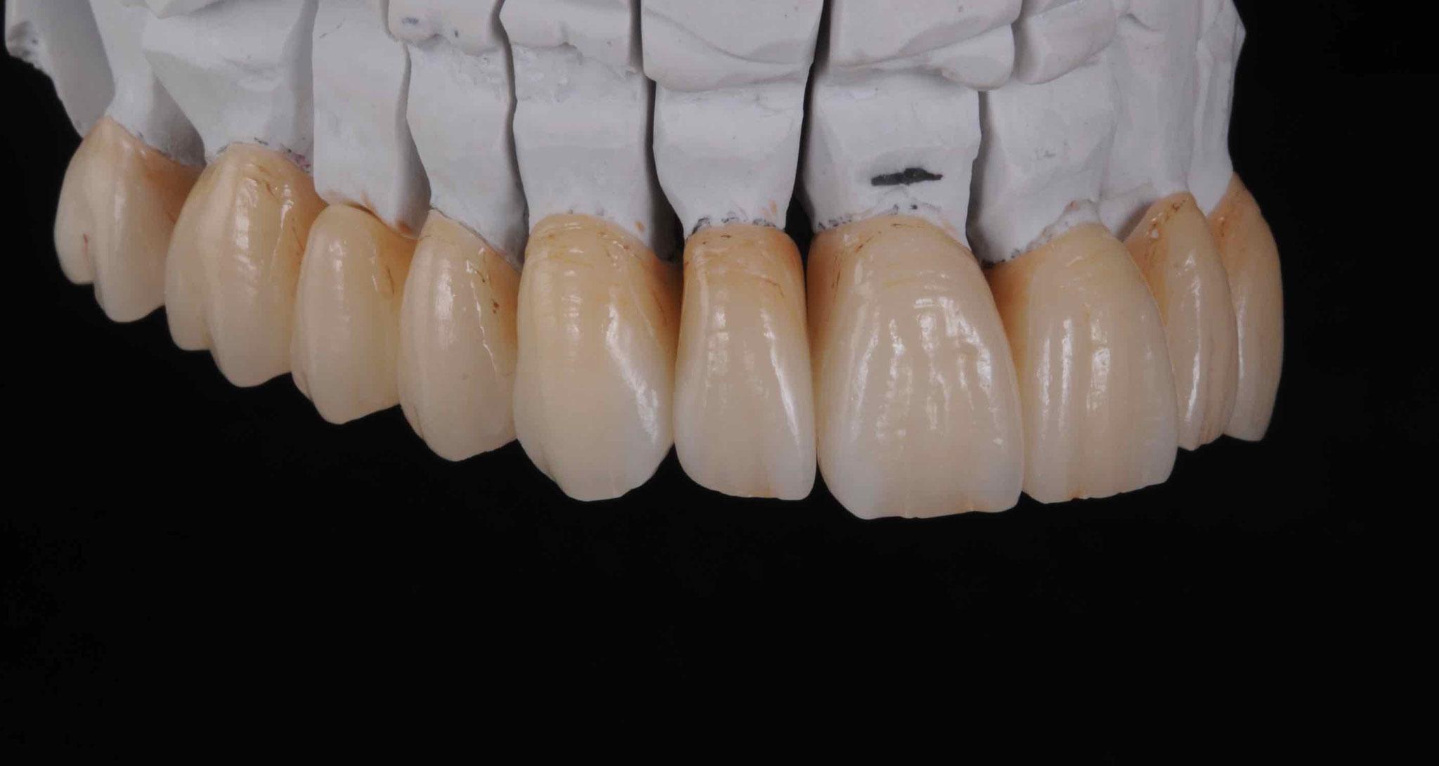 Case-6. 5 Upper Jaw
