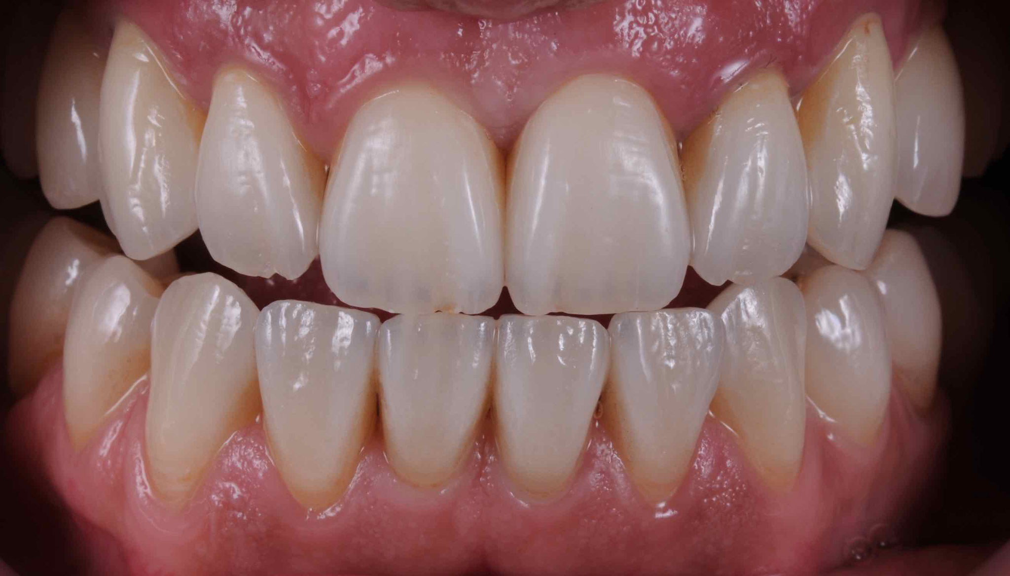 Case-4. 6 Crowns upper jaw and veneers on lower jaw after 3 years