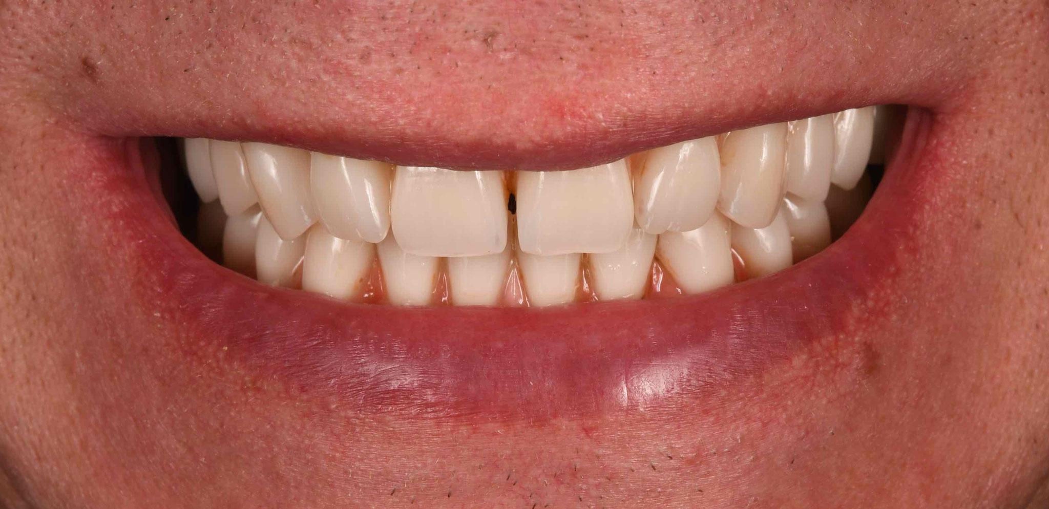 Case-3. 4 New Smile Creapearl