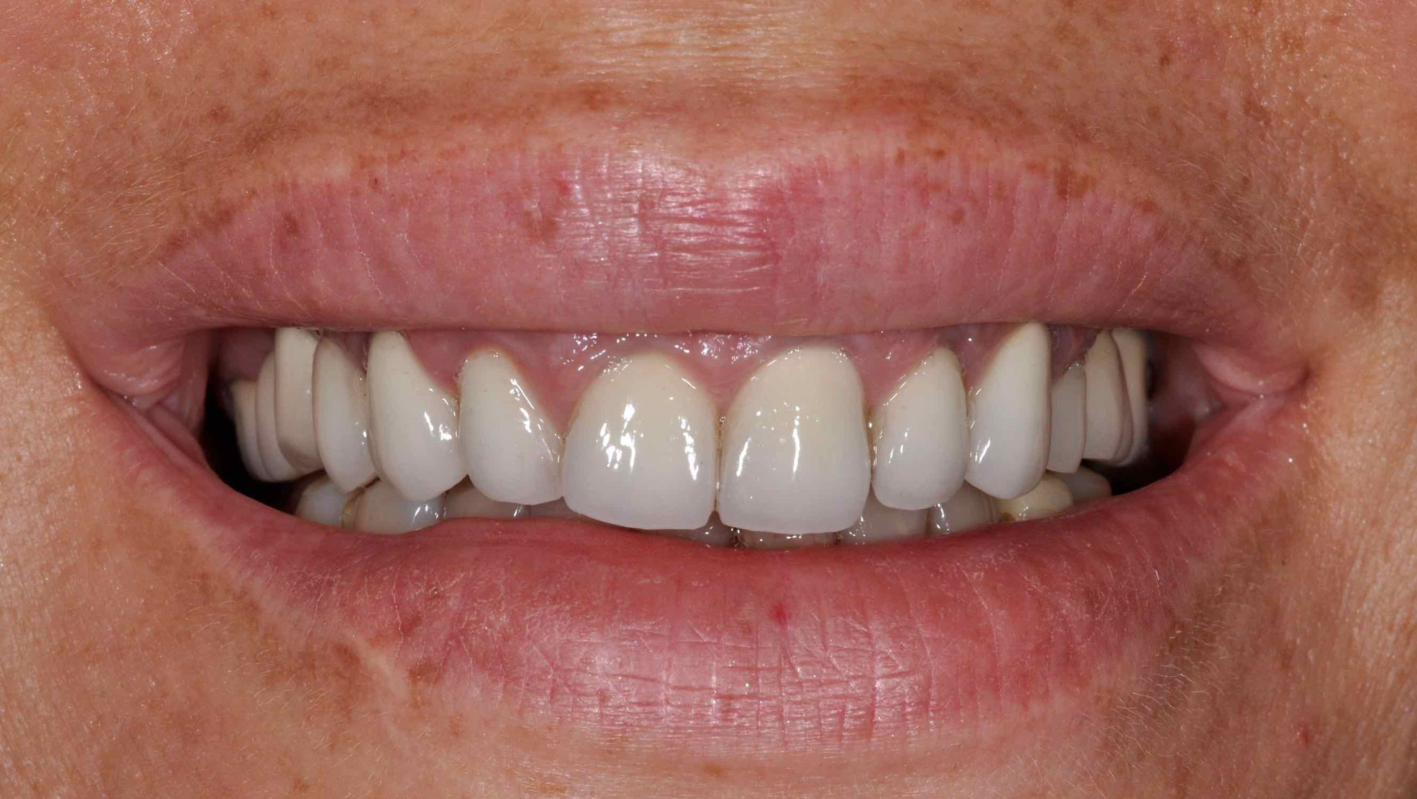 Case-4. 1 Initial situation with old zirconia crowns
