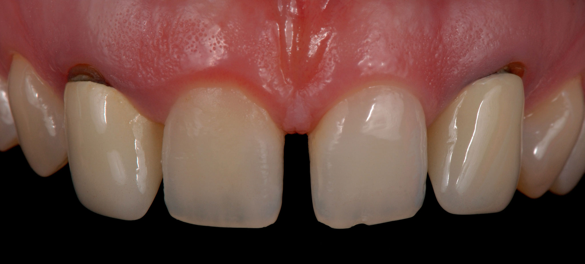Case-3 Zr crowns. Before