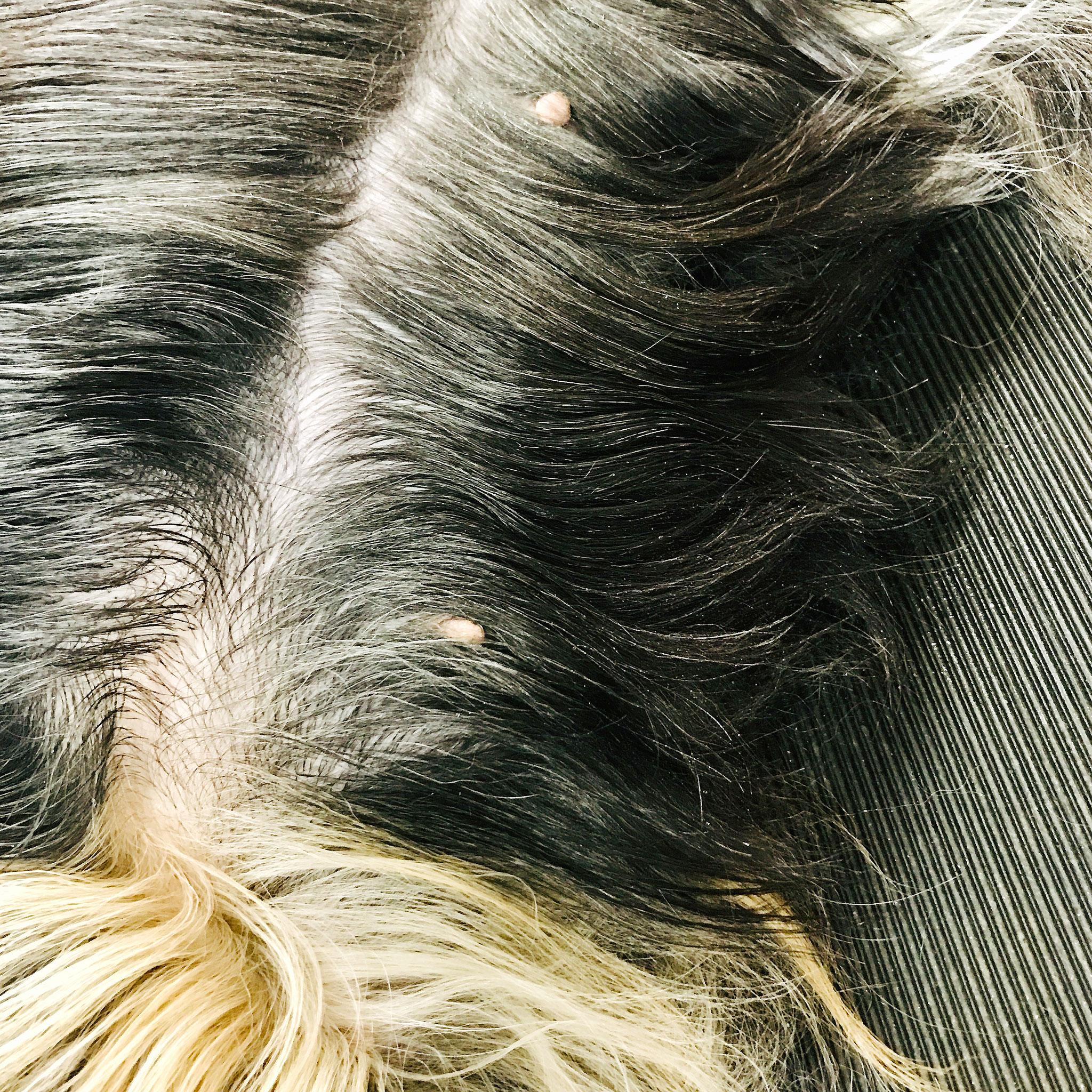 Abtrennen der Haare am Bauch auf der linken Seite