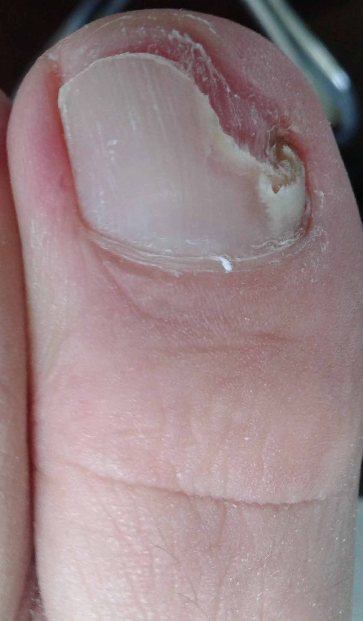 Lelijke of beschadigde nagel(s)? Dat is toch niet meer nodig!
