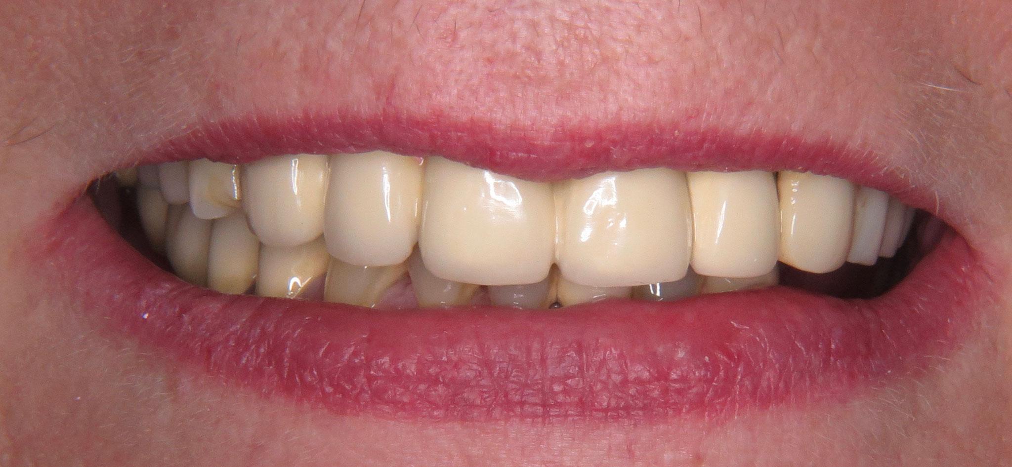 Von der Teilprothese zu neuen festen Zähnen - Praxis für