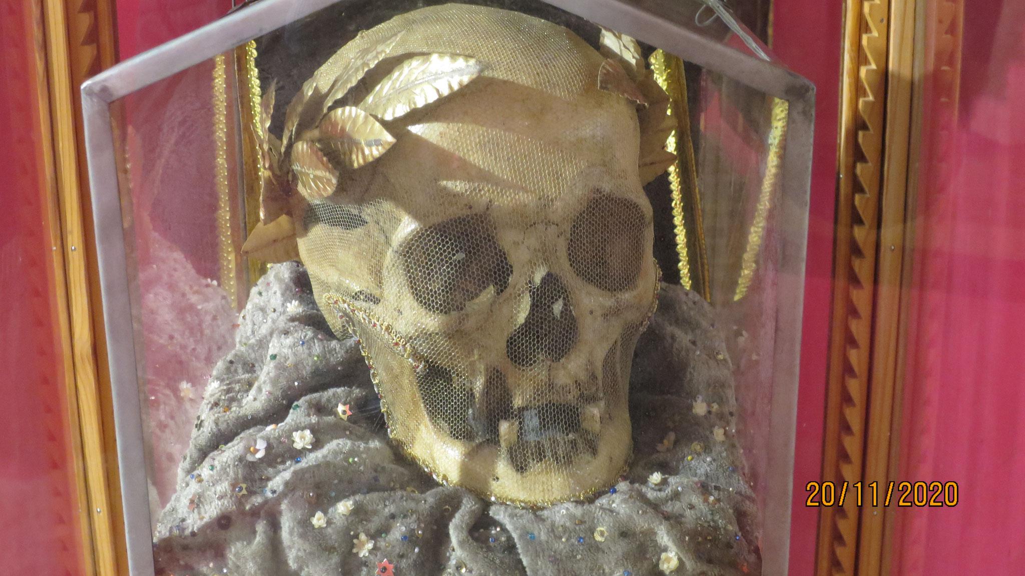 Hans im Sand war auf Bernerseite der Anführer der Gegenreformation. Er wurde zum Tod verurteilt, sein Kopf hing am Brünig auf einem Spiess.