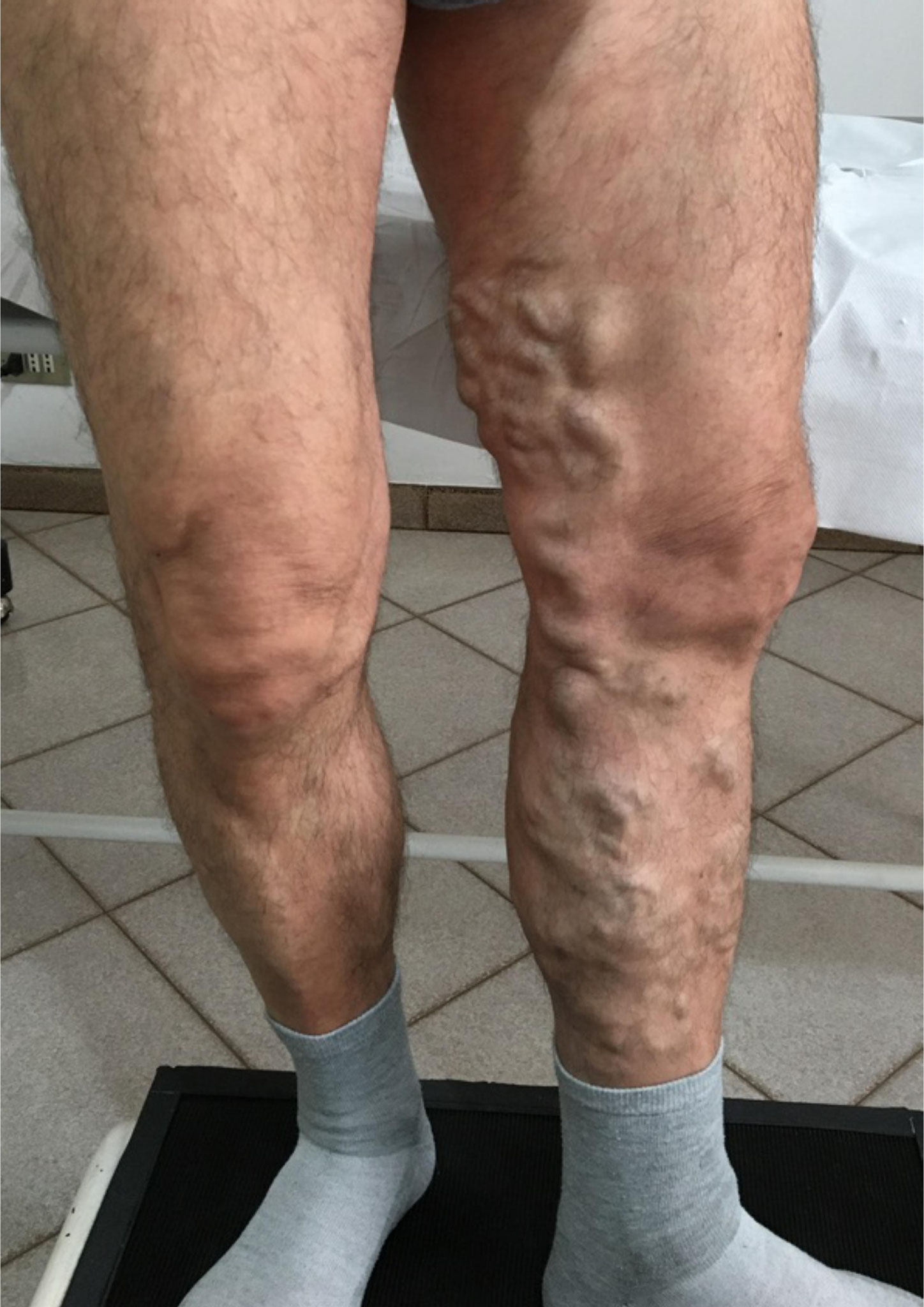 Vene varicoase în fotografie de formă neglijată