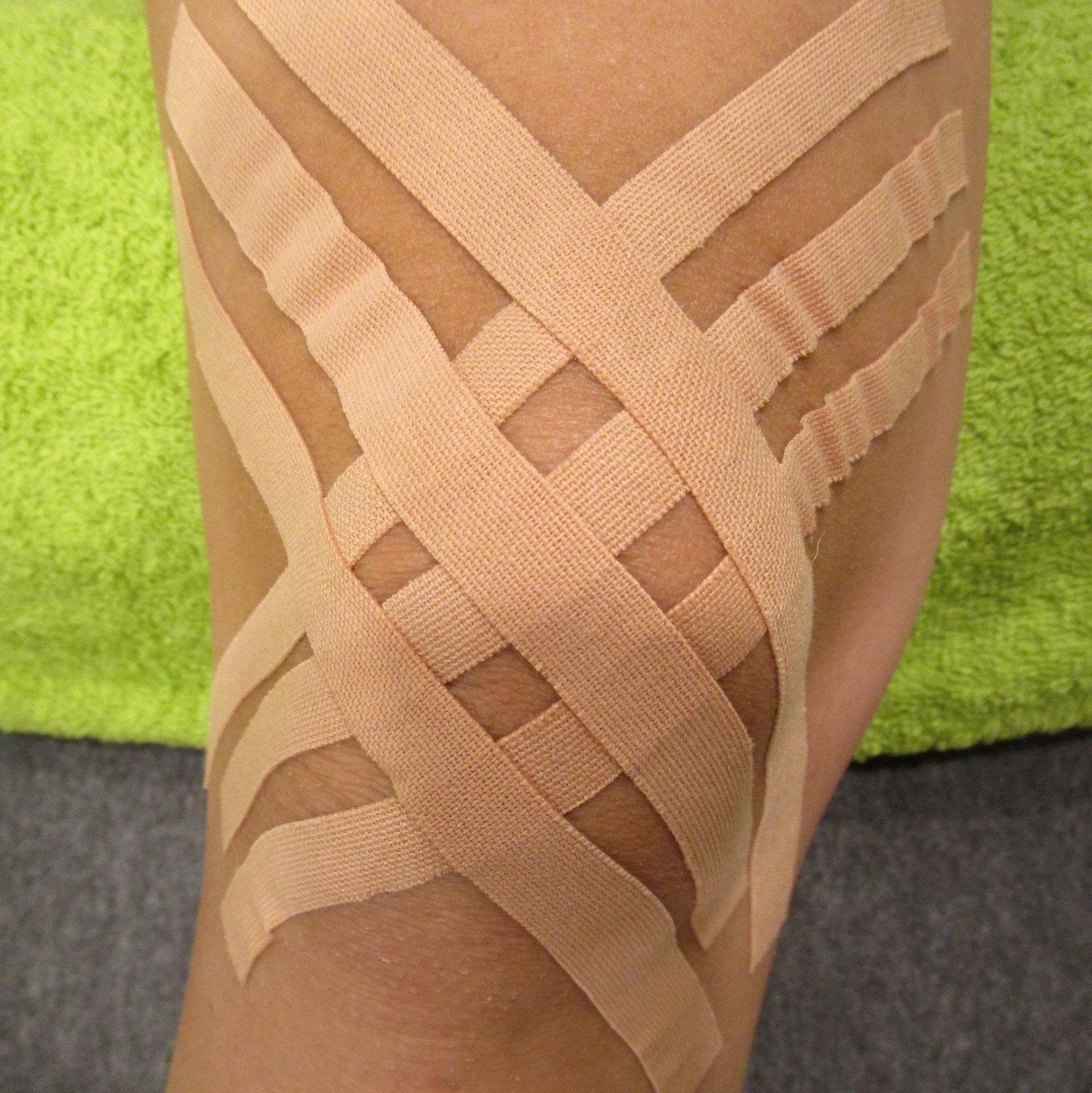 Lymphtape Kniegelenk