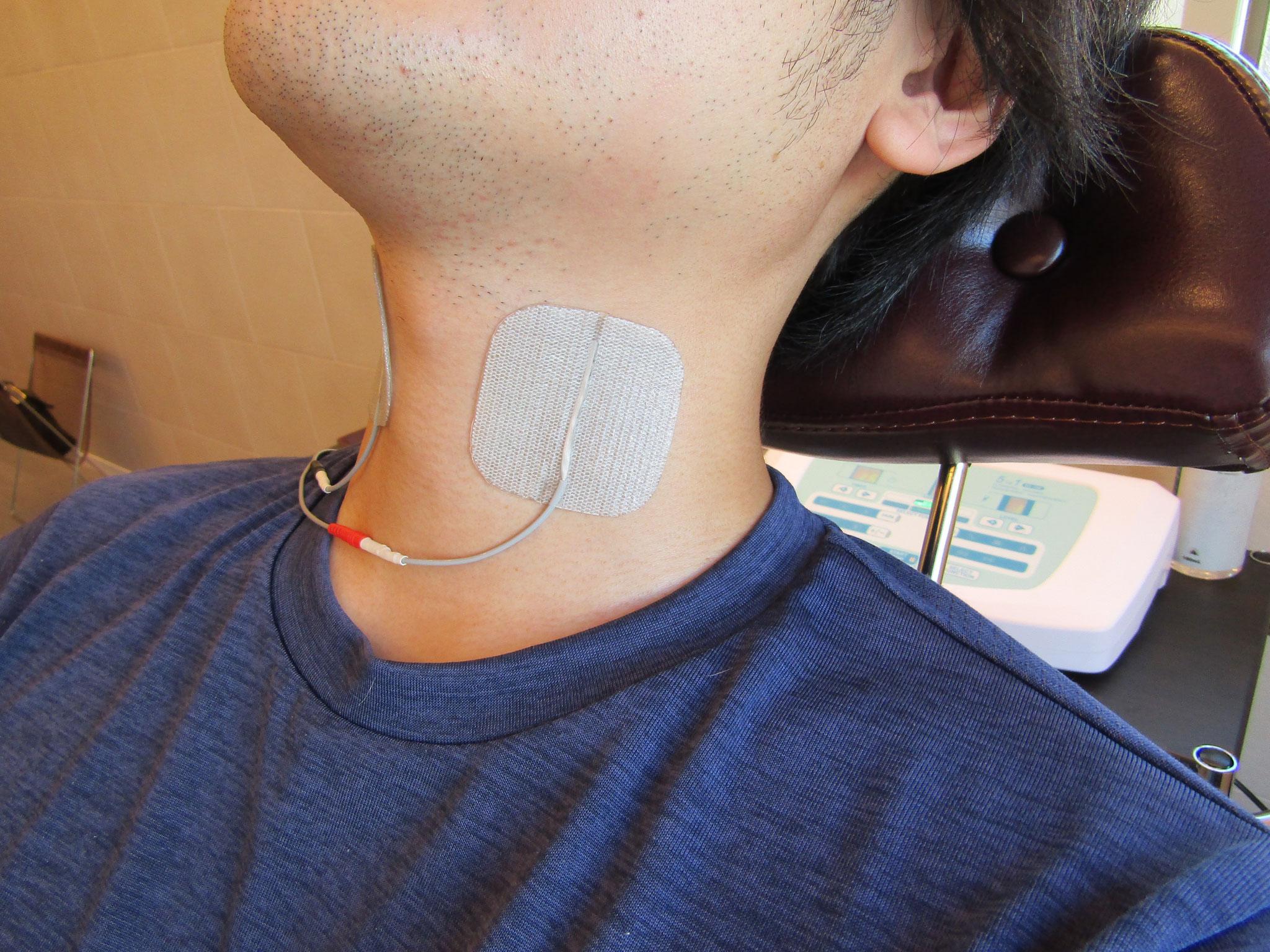 外喉頭筋活性化微弱電流