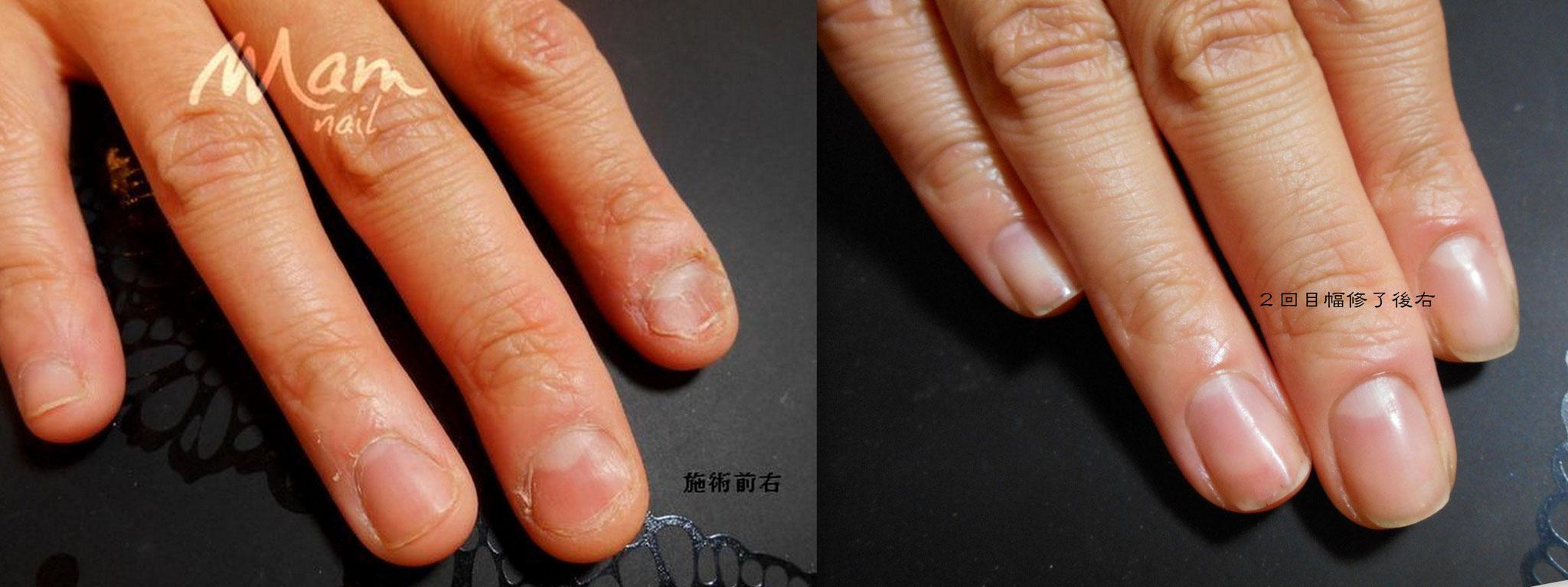 富士市深爪矯正/初回施術前→コース二回目の6回目施術・修了後