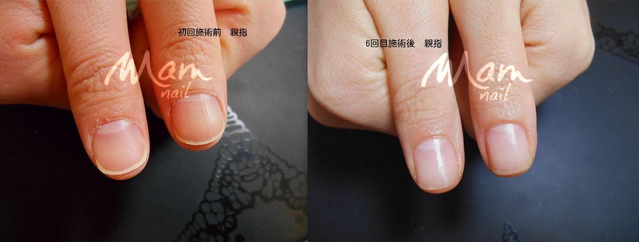 富士市深爪矯正/深爪中度