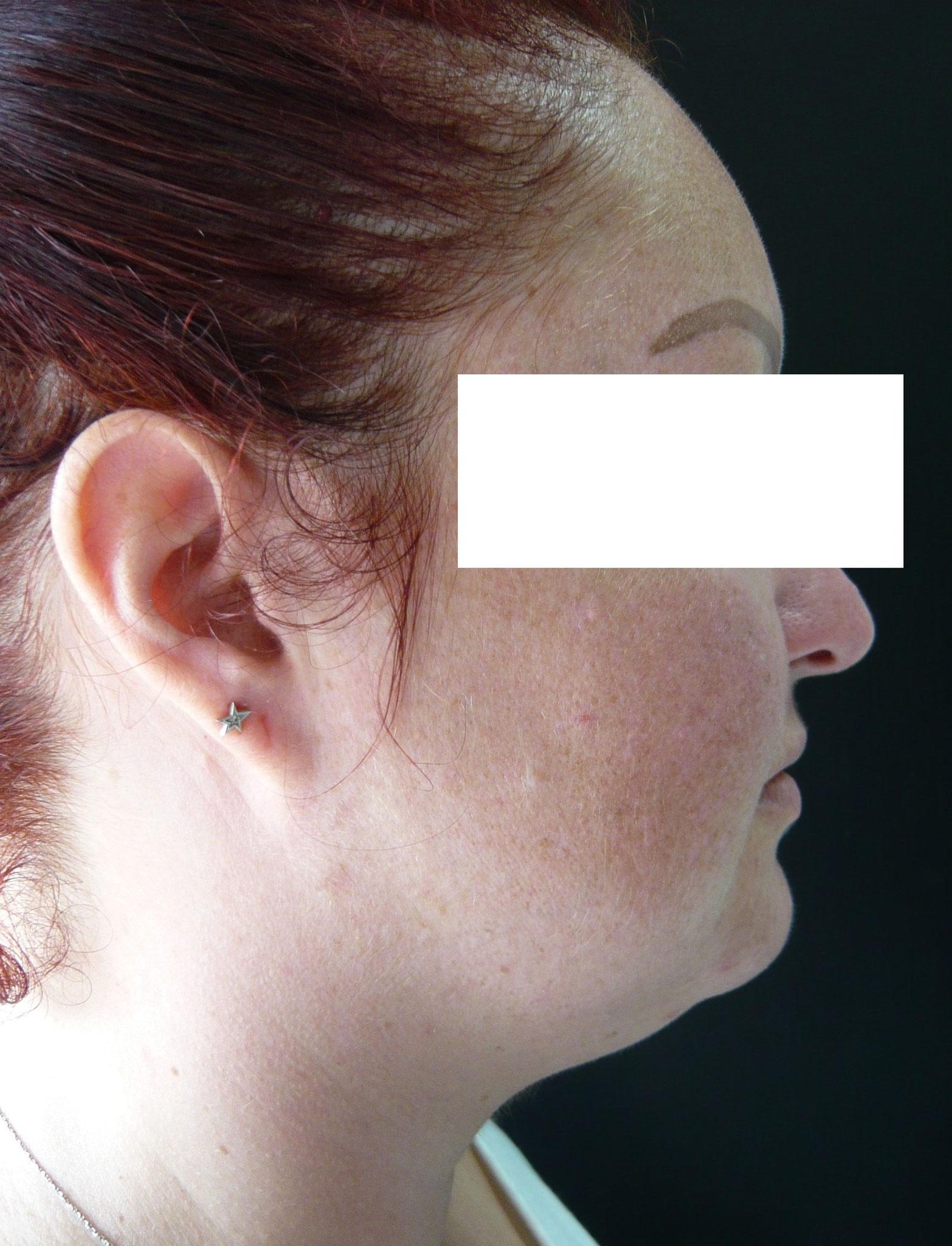 visage rond avec menton graisseux chez une femme jeune