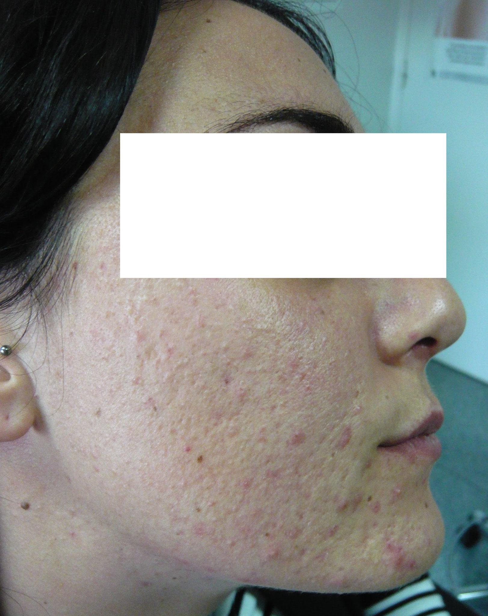 peau grasse acneique avant traitement