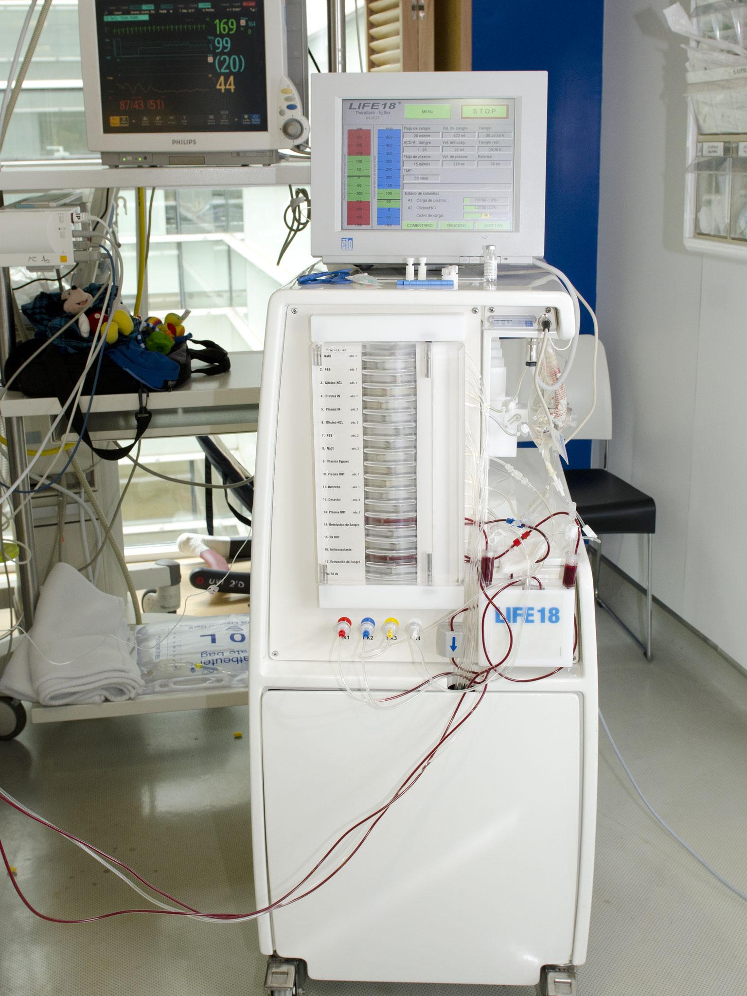 Terapia de lavado de Anticuerpos