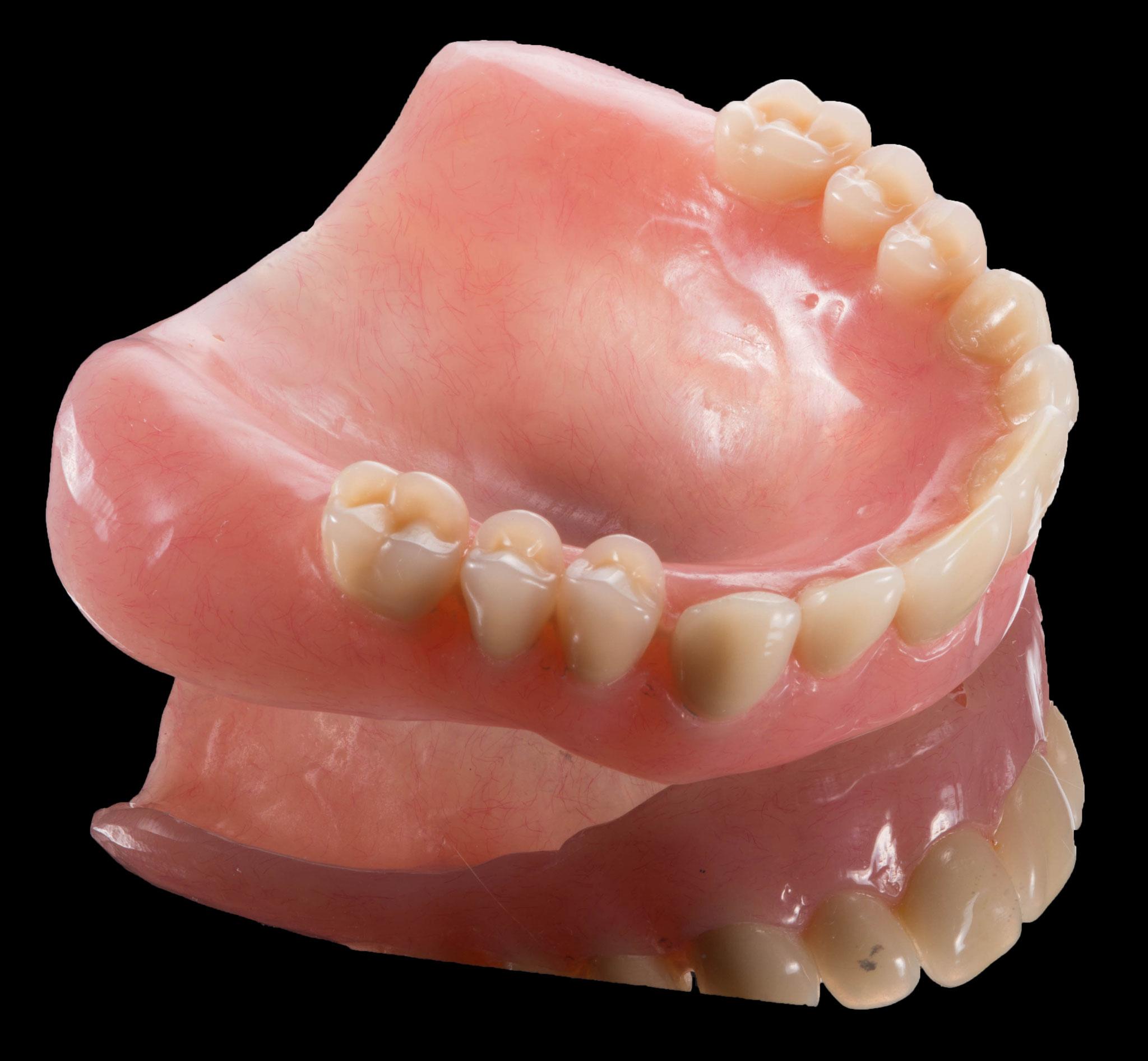 総入歯、部分入れ歯