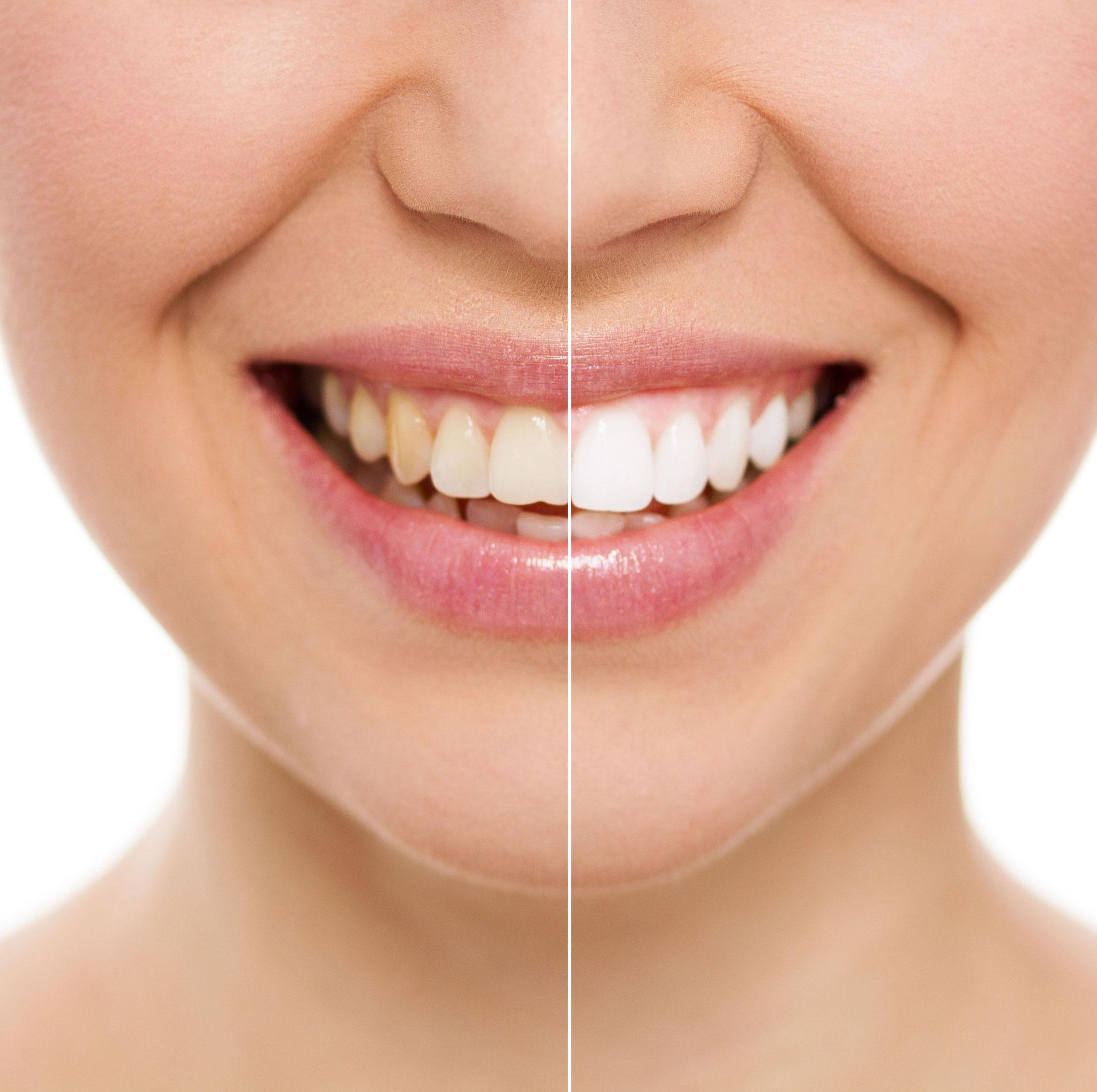 歯のブリーチング