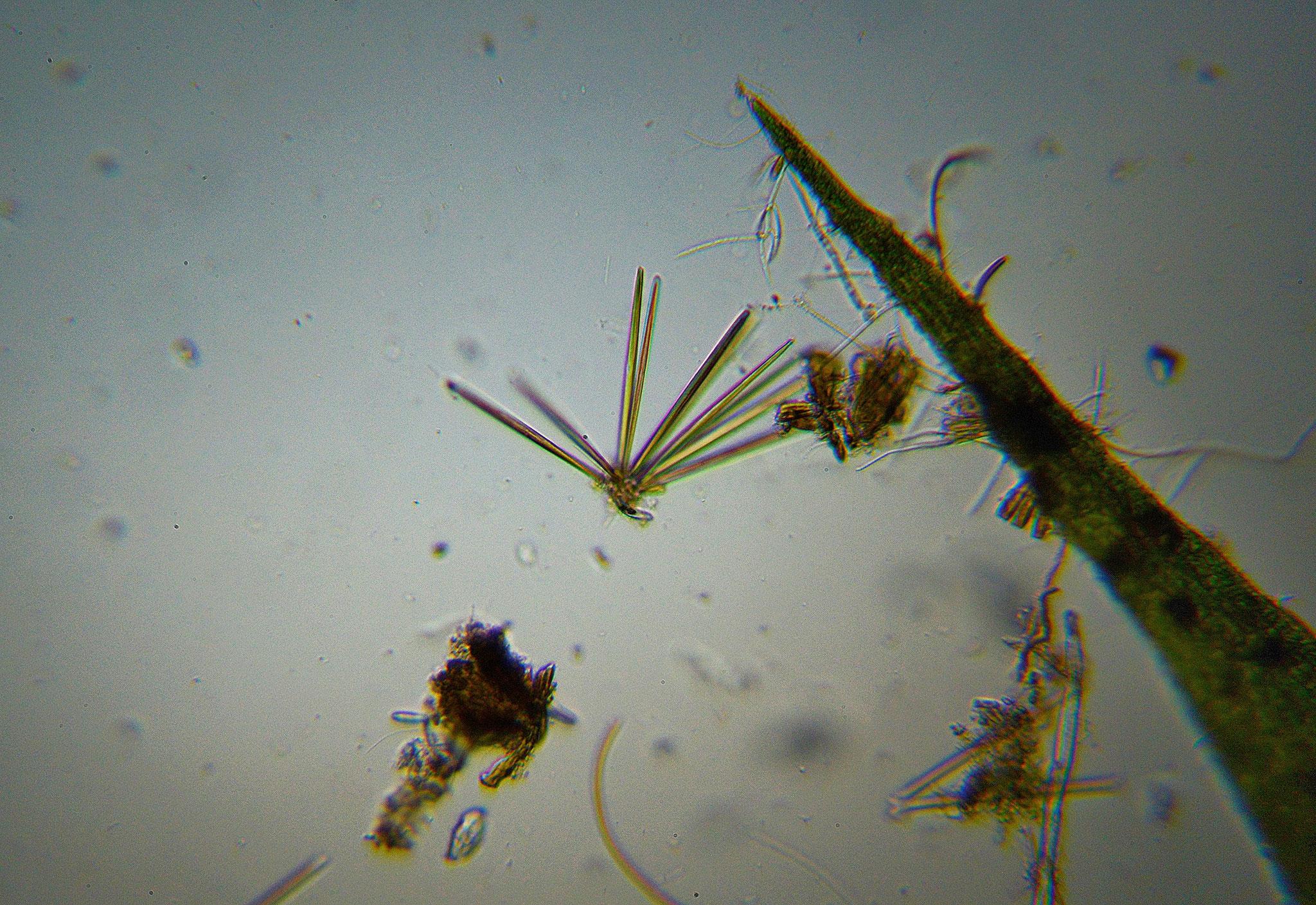 Strahlenförmige Kolonie, vermutlich Stab-Kieselalgen