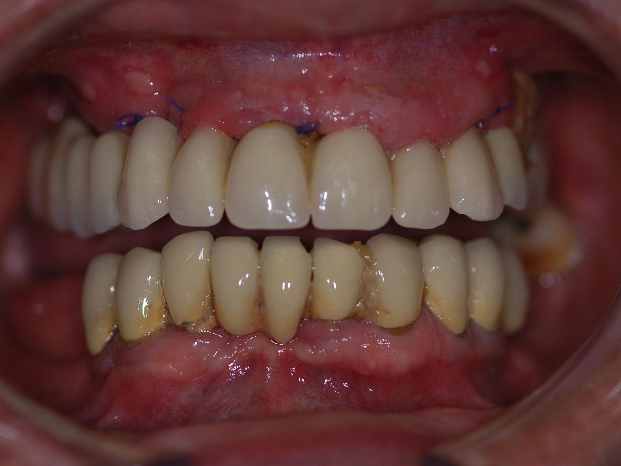 A 7 jours de cicatrisation