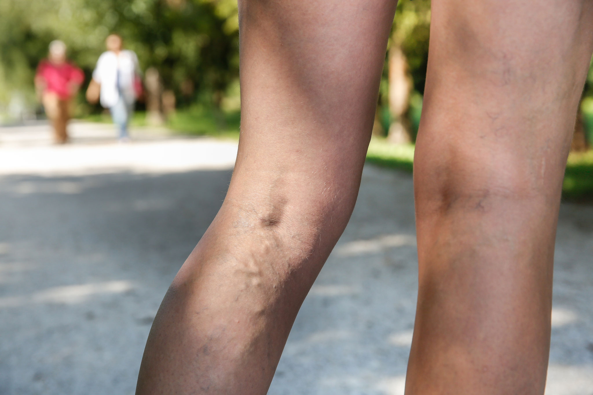 You are living with painful varicose veins.