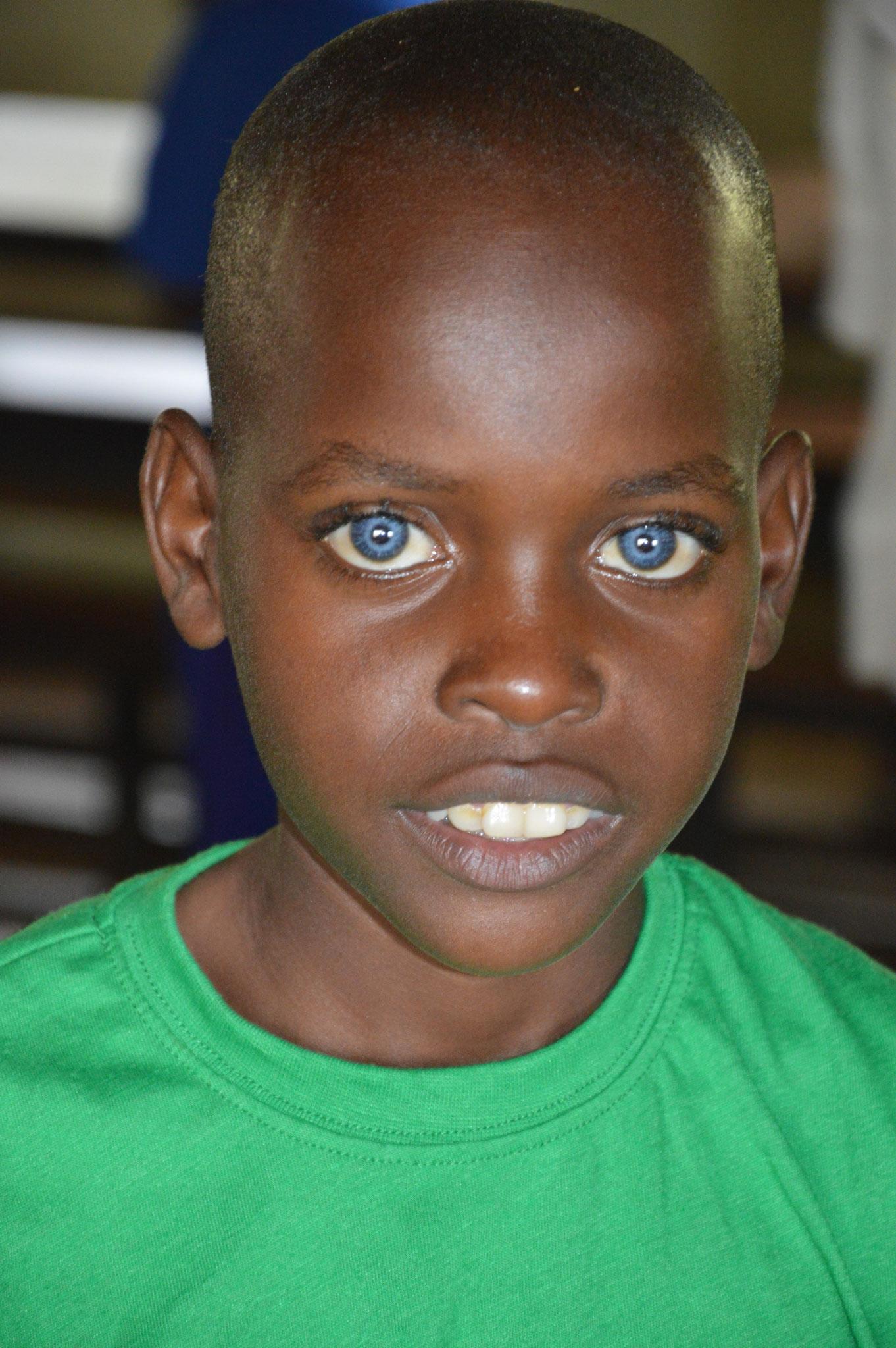 Dieser Junge hat eine Krankheit, welche einerseits die Gehörlosigkeit erklärt, zum anderen hat er diese blauen Augen und wird irgendwann erblinden. Eine Heilung ist nicht möglich.