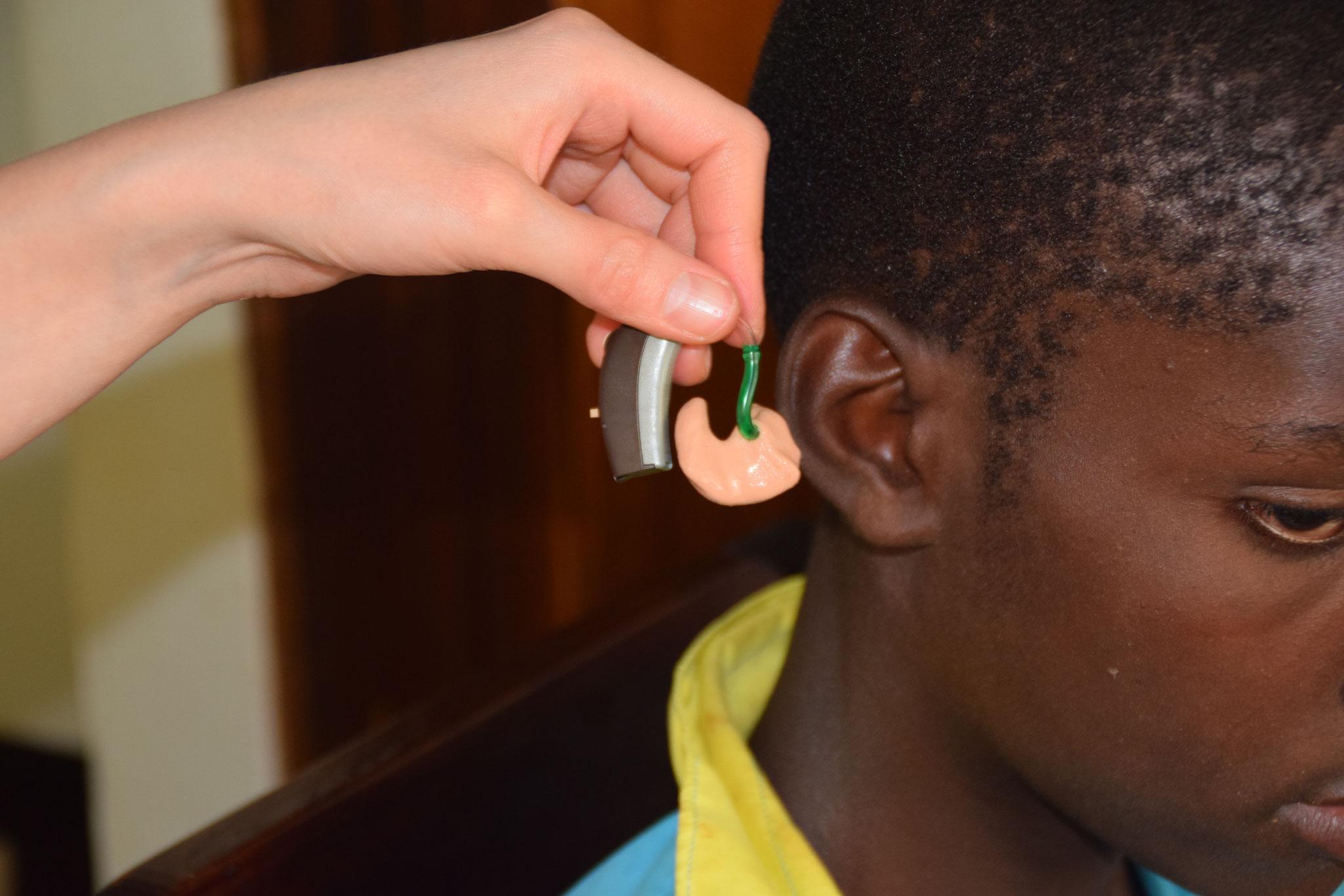 Hörgerät ist fertig für den Gebrauch.