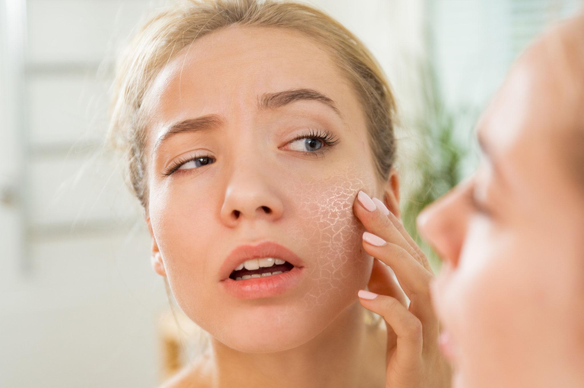 Make-up bei Neurodermitis