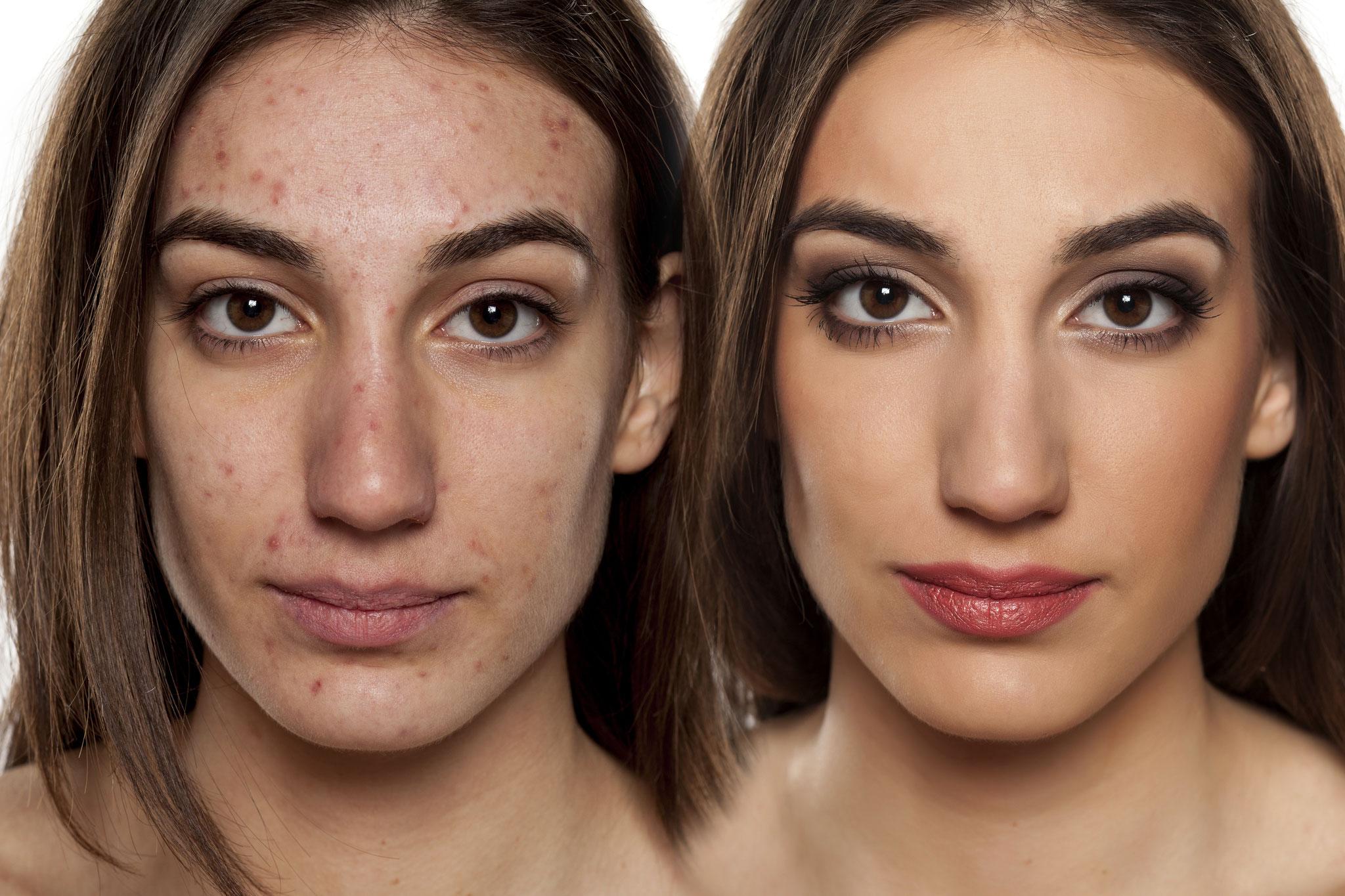 Make-up bei Akne