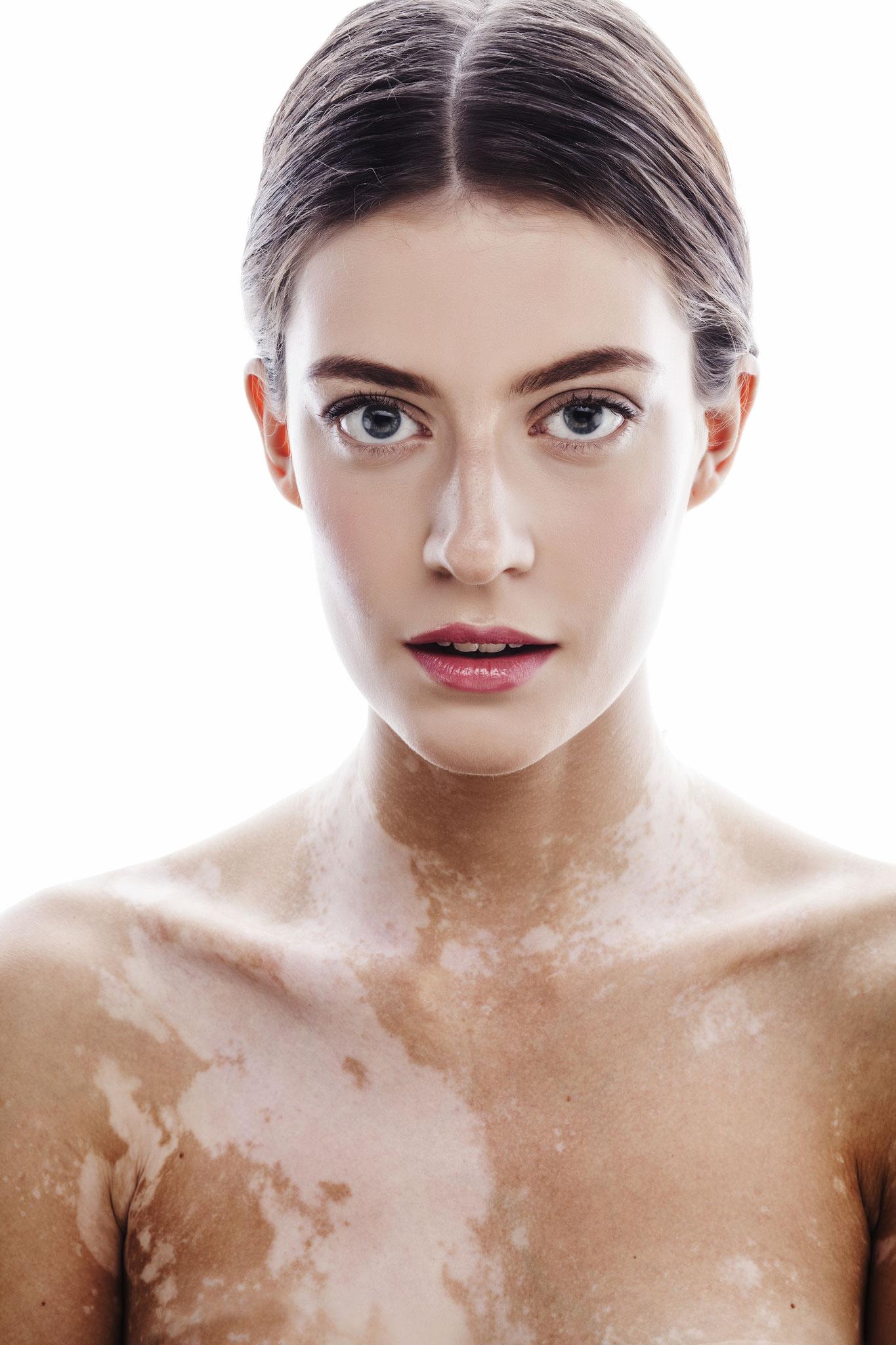 Make-up bei Vitiligo