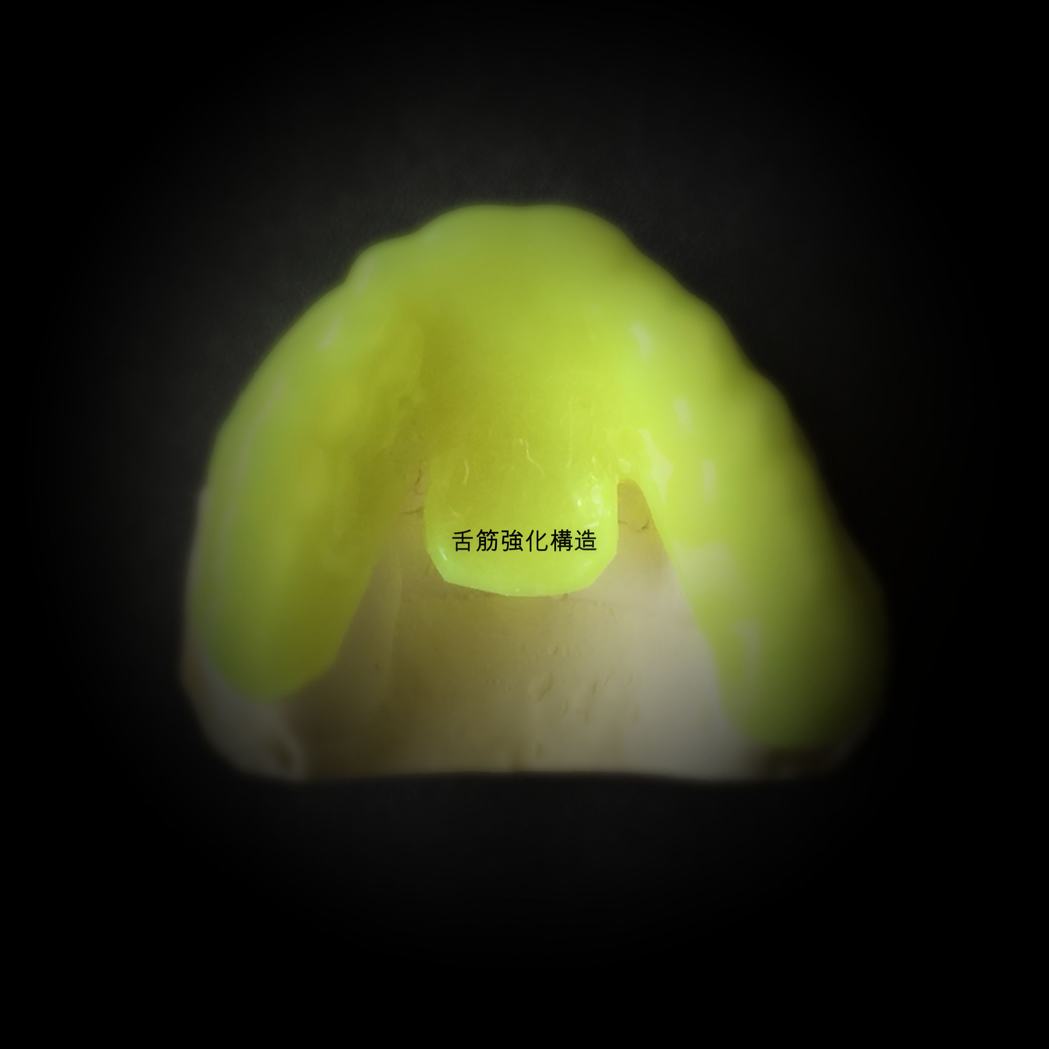 舌筋強化構造 特許権侵害