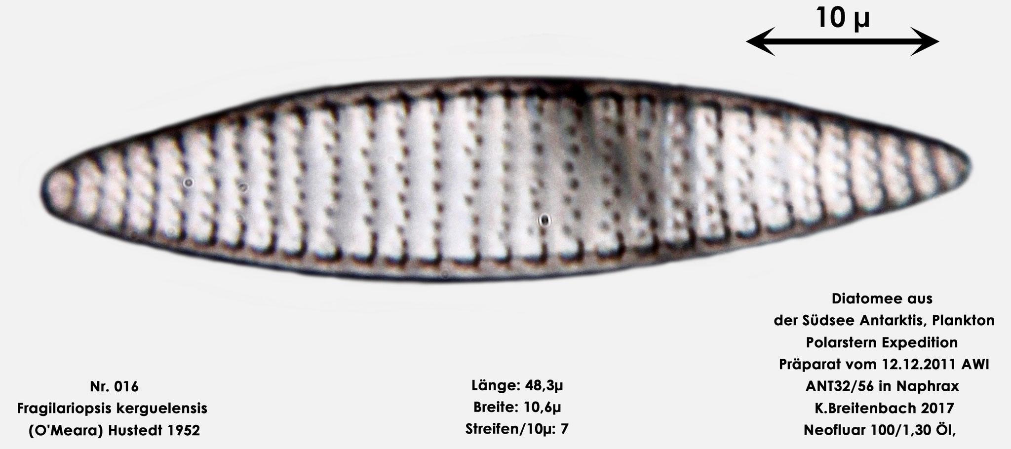Bild 6 Art: Fragilariopsis kerguelensis (O'Meara) Hustedt 1952